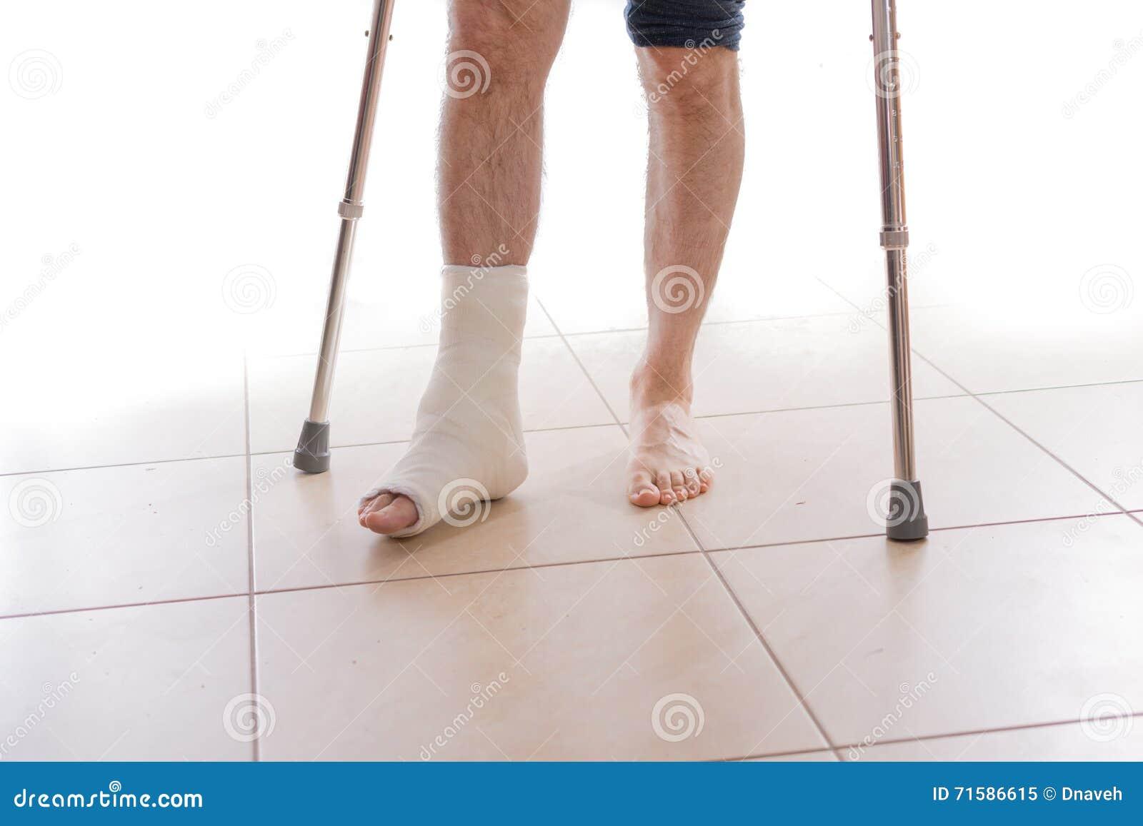 Junger Mann mit einem gebrochenen Knöchel und einer Beinform