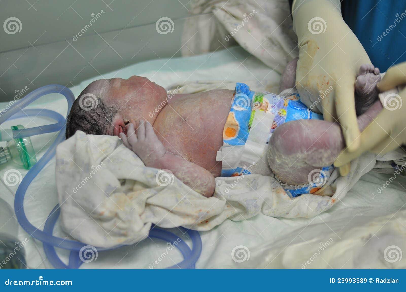 Just born baby