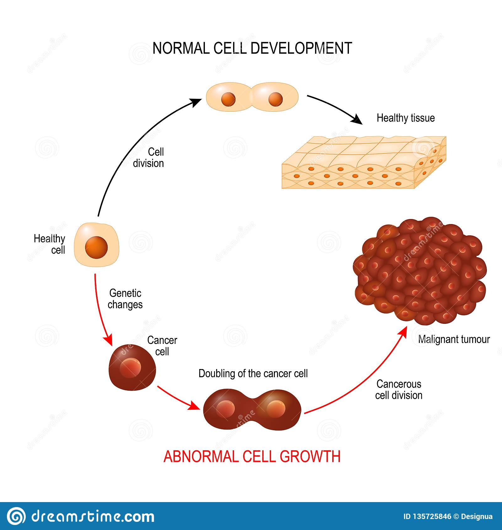 Kankercel illustratie die de ontwikkeling van de kankerziekte tonen