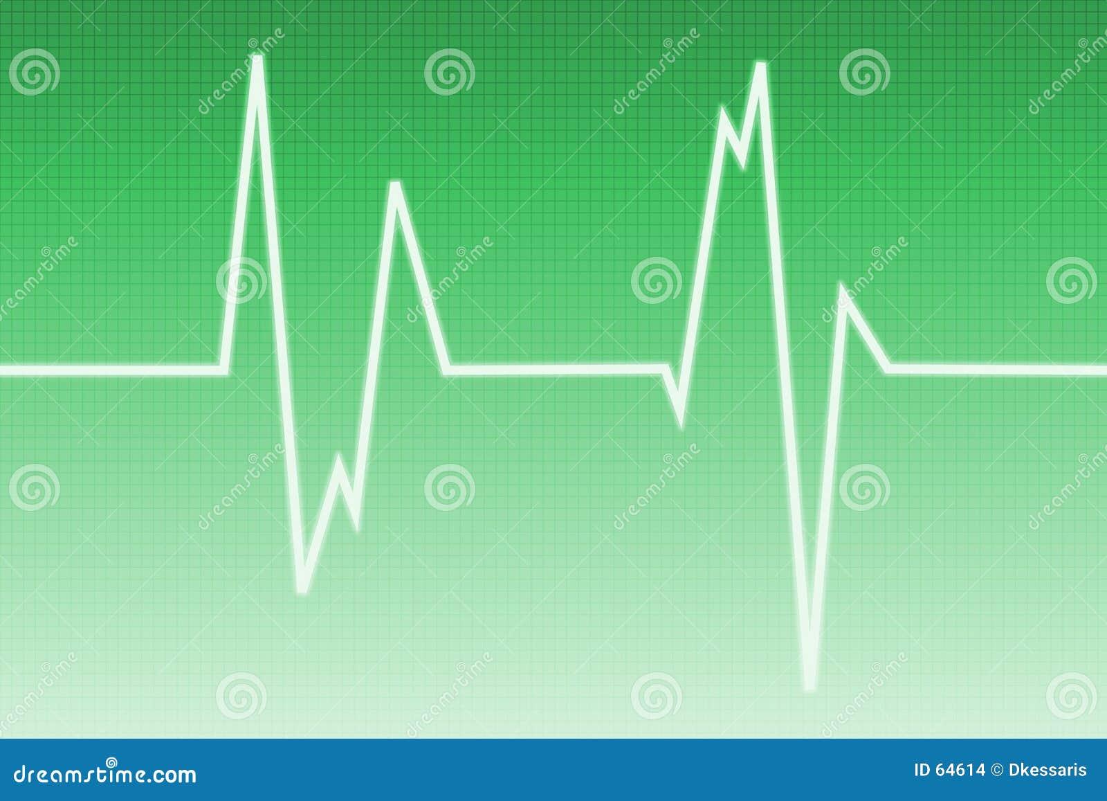Kardiogram fala radiowa