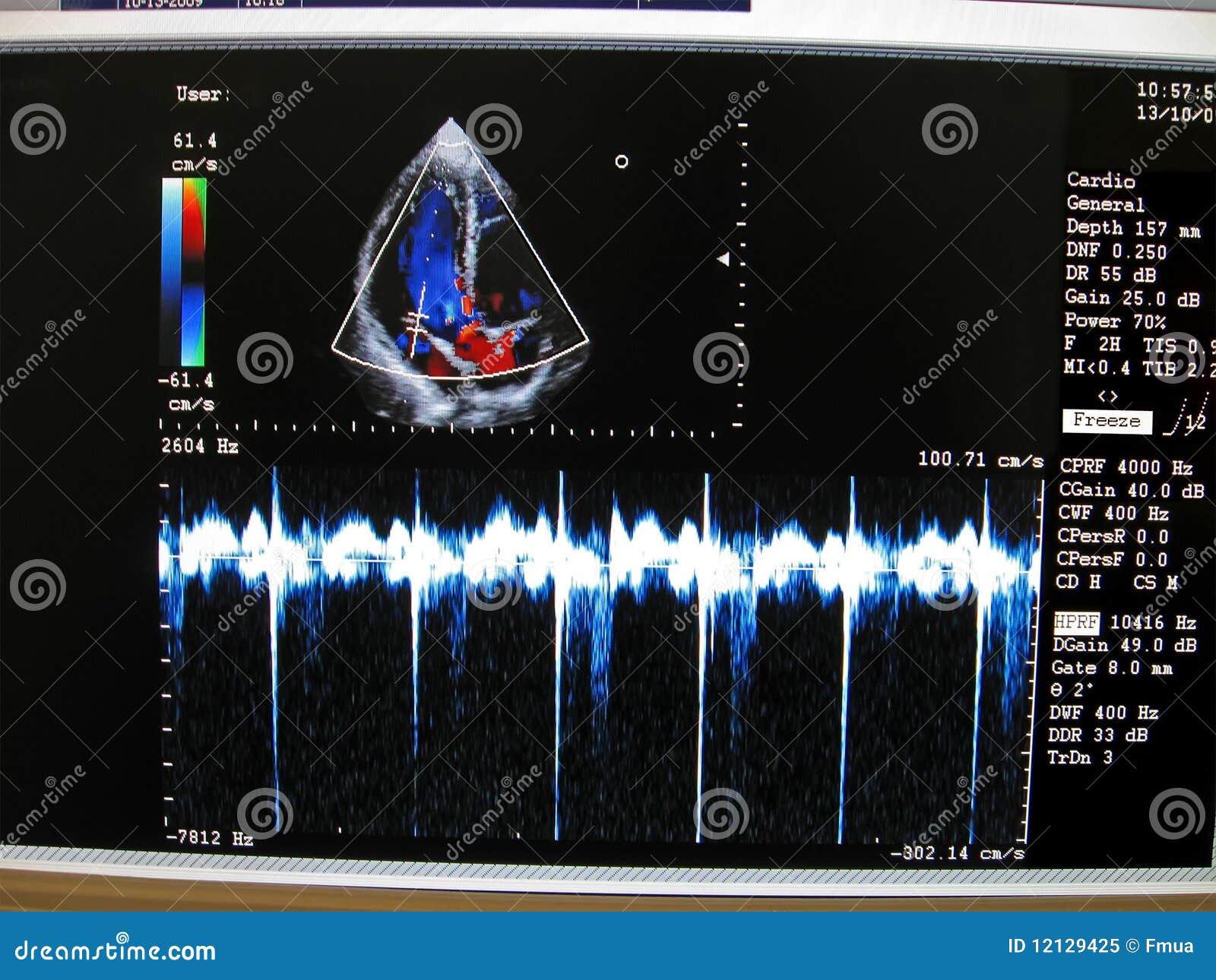 Kardiovaskuläres Überwachungsgerät der Farbe, Herz Diagramm