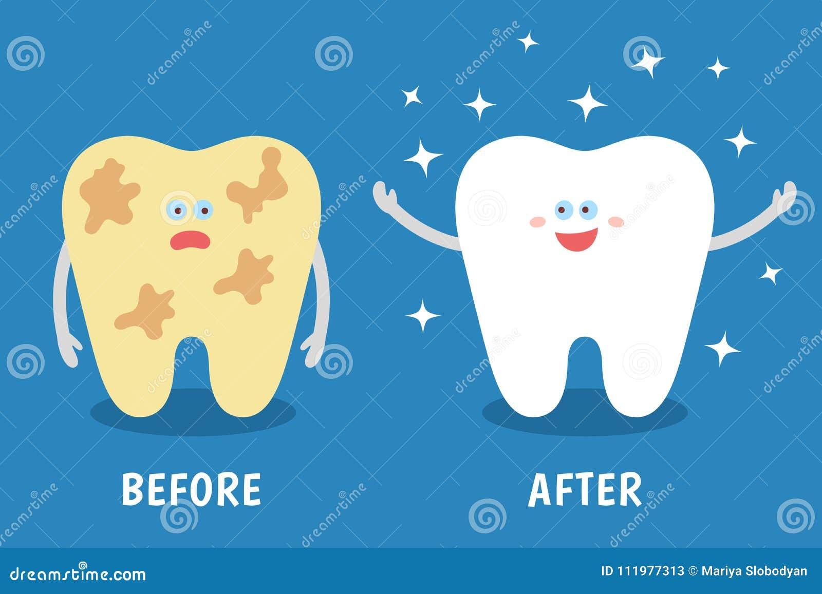 Karikaturzahn vor und nach Reinigung oder Weiß werden oder zahnmedizinische Verfahren