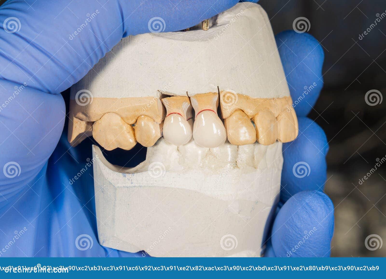 Keramische Zahnkronennahaufnahme auf einem Gipsmodell Zahnmedizinische Prothese