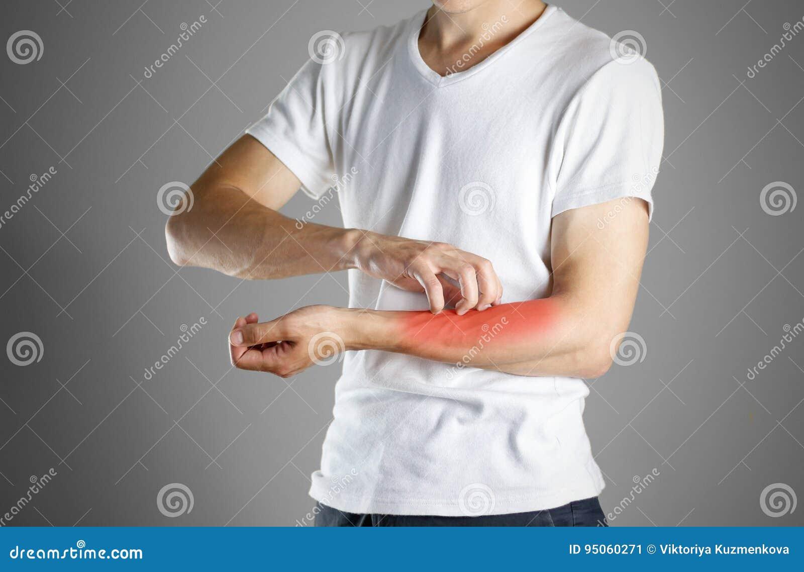 Kerel in wit overhemd die zijn wapen krassen schurft Kras de hand