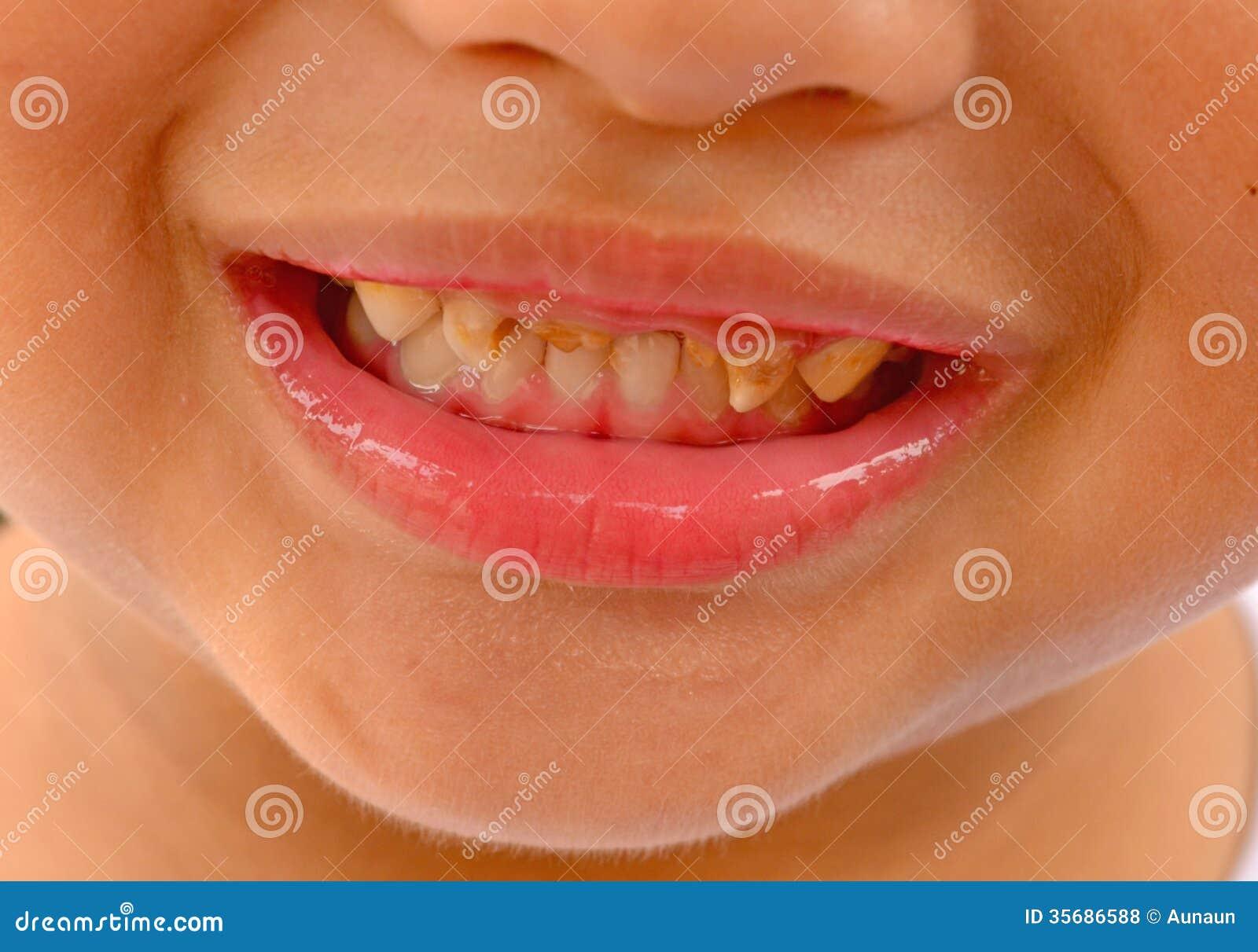 Плохие зубы у ребенка фото