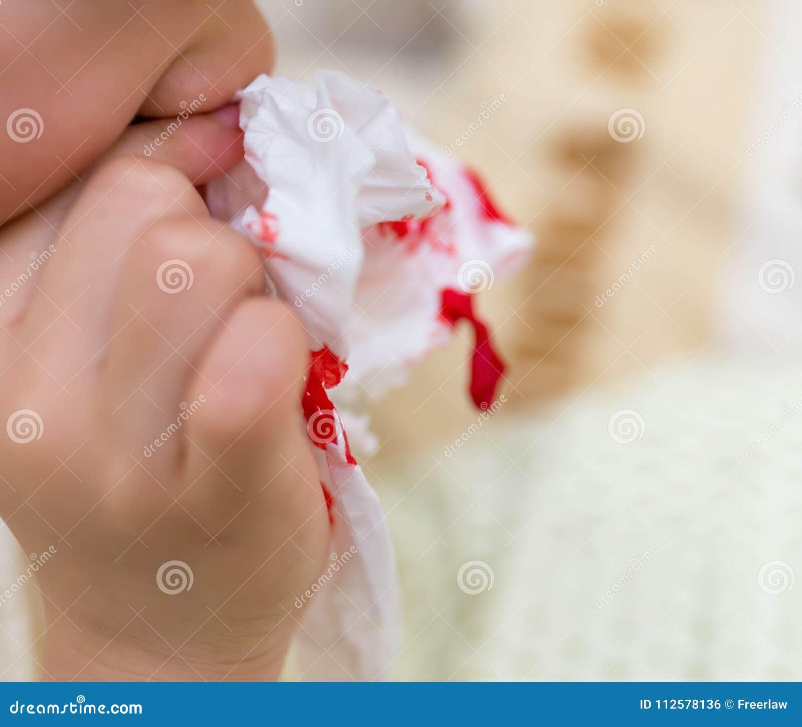Kid Using Tissue To Stop Nose Bleeding Stock Photo - Image ...