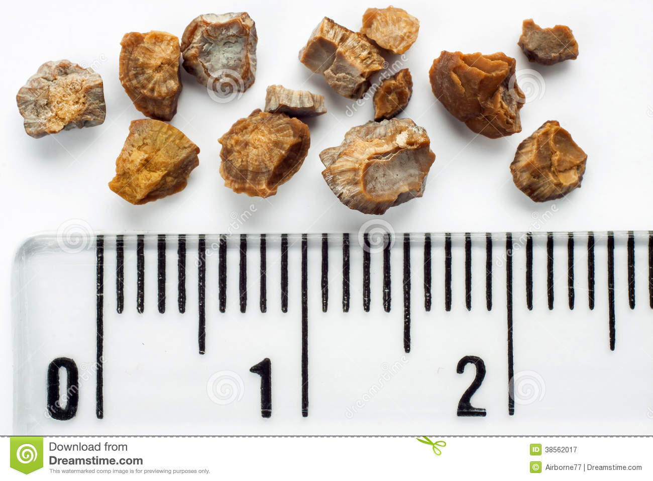 Kidney stones after ESWL intervention. Lithotripsy. Scale in ...