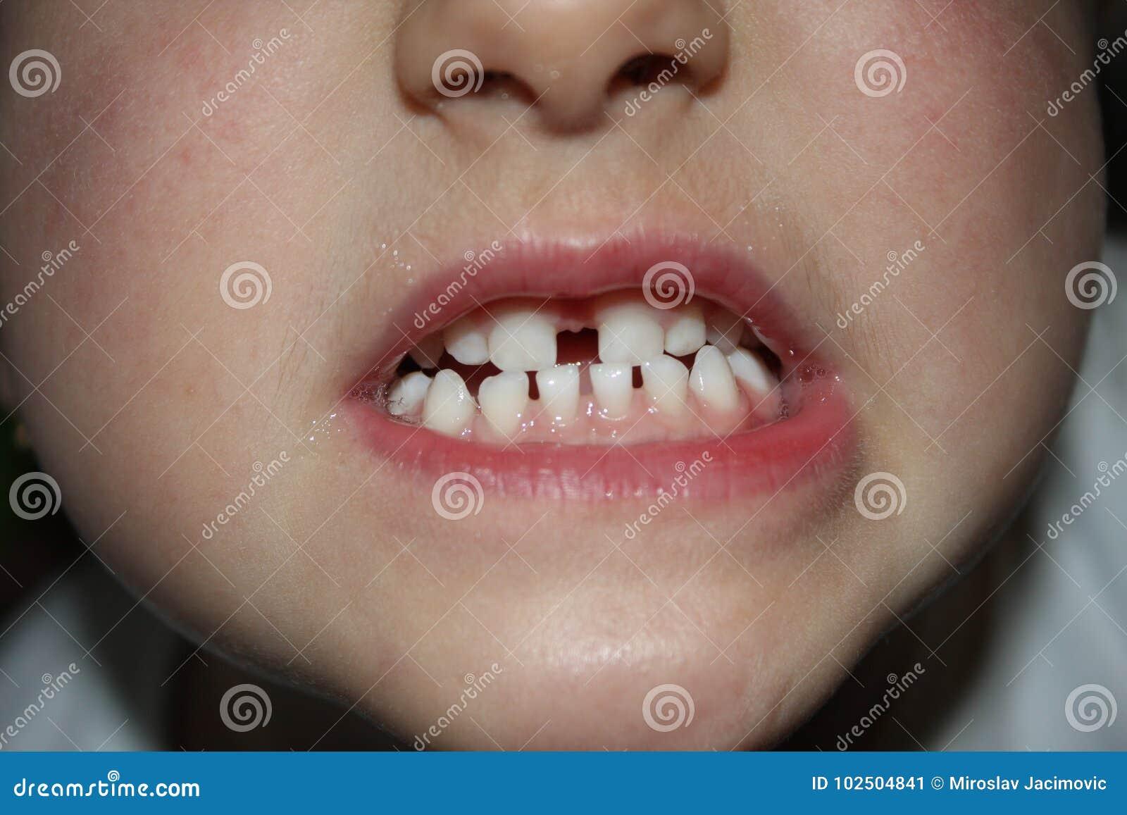Kids teeths - closeup look