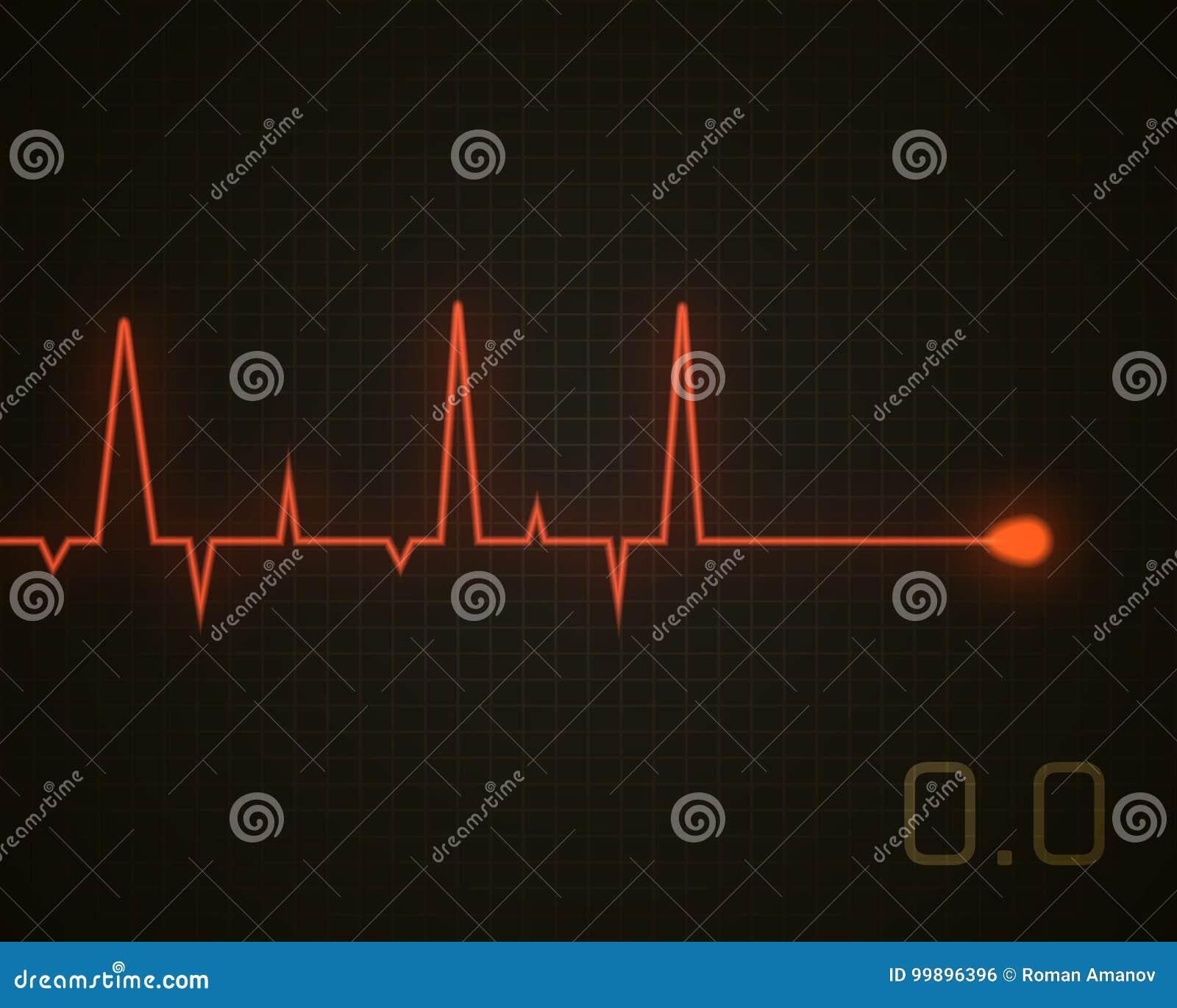 Kierowego rytmu nieżywa grafika Wektorowy kierowy puls odizolowywający na czerni