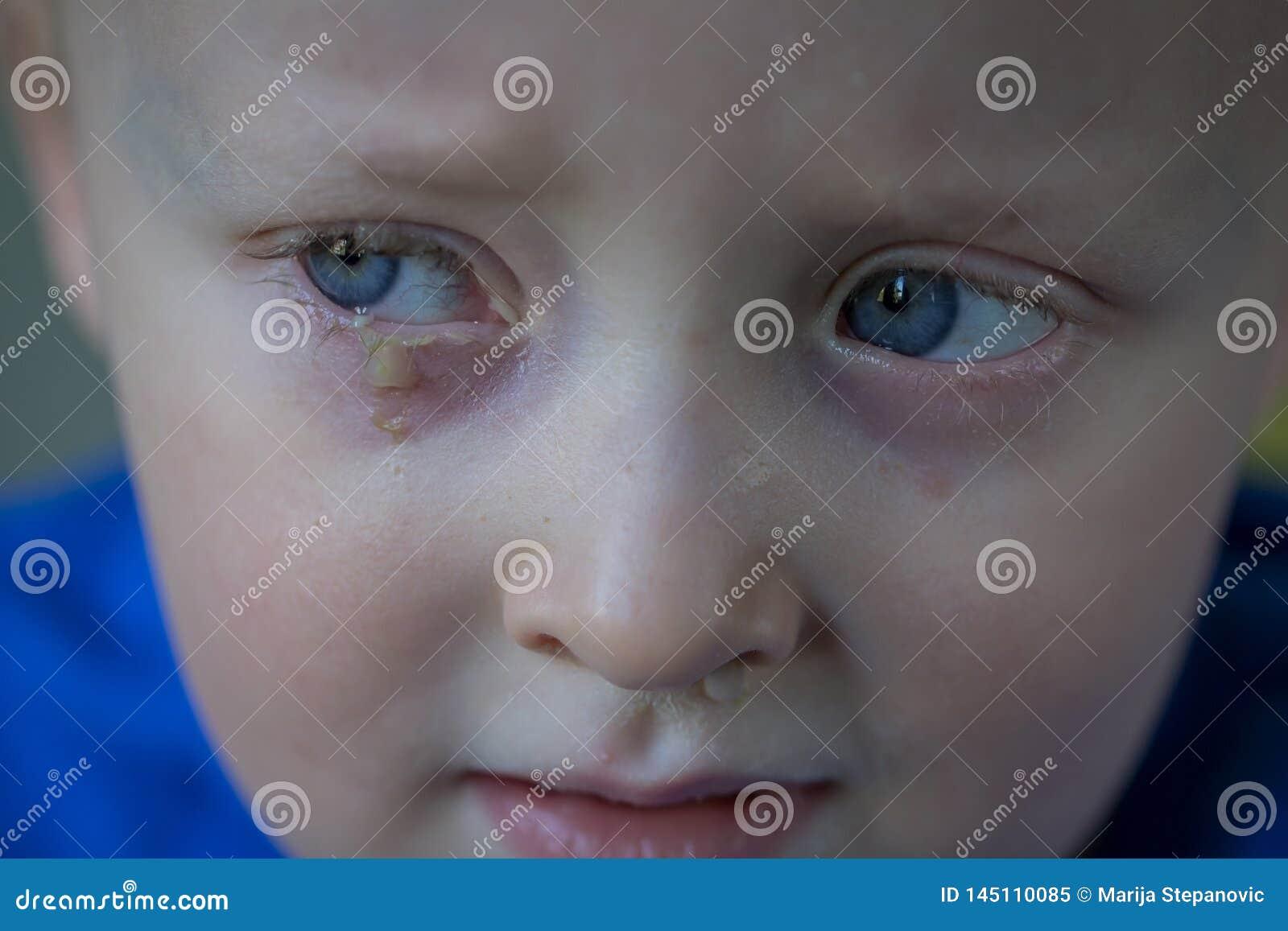 Kind met etterende bindvliesontsteking, besmettelijke oogbesmetting Symptomen en behandelingsconcept Sluit omhoog