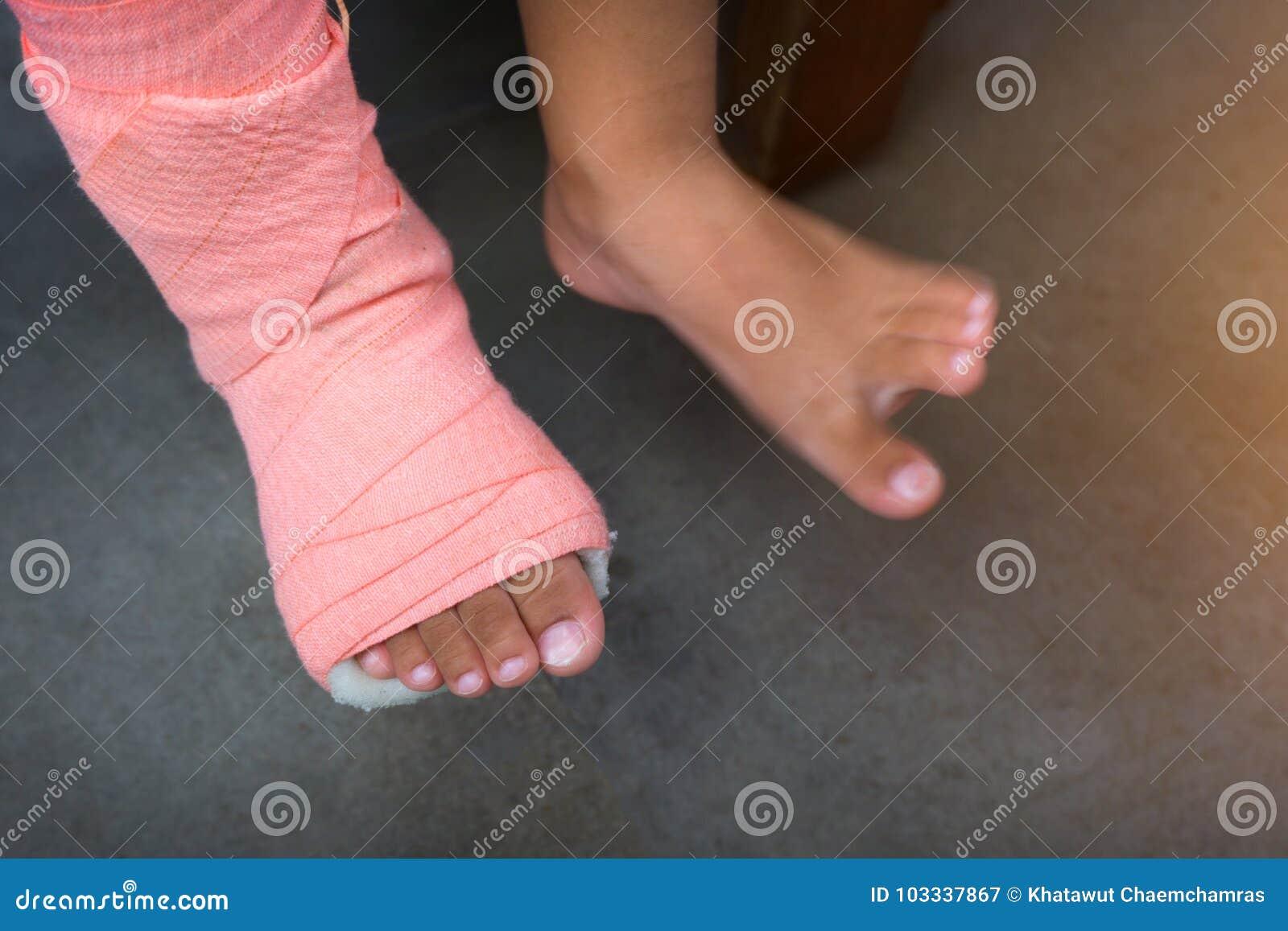 Kinder, Die Eine Schiene Des Beines Gebrochen Von Der