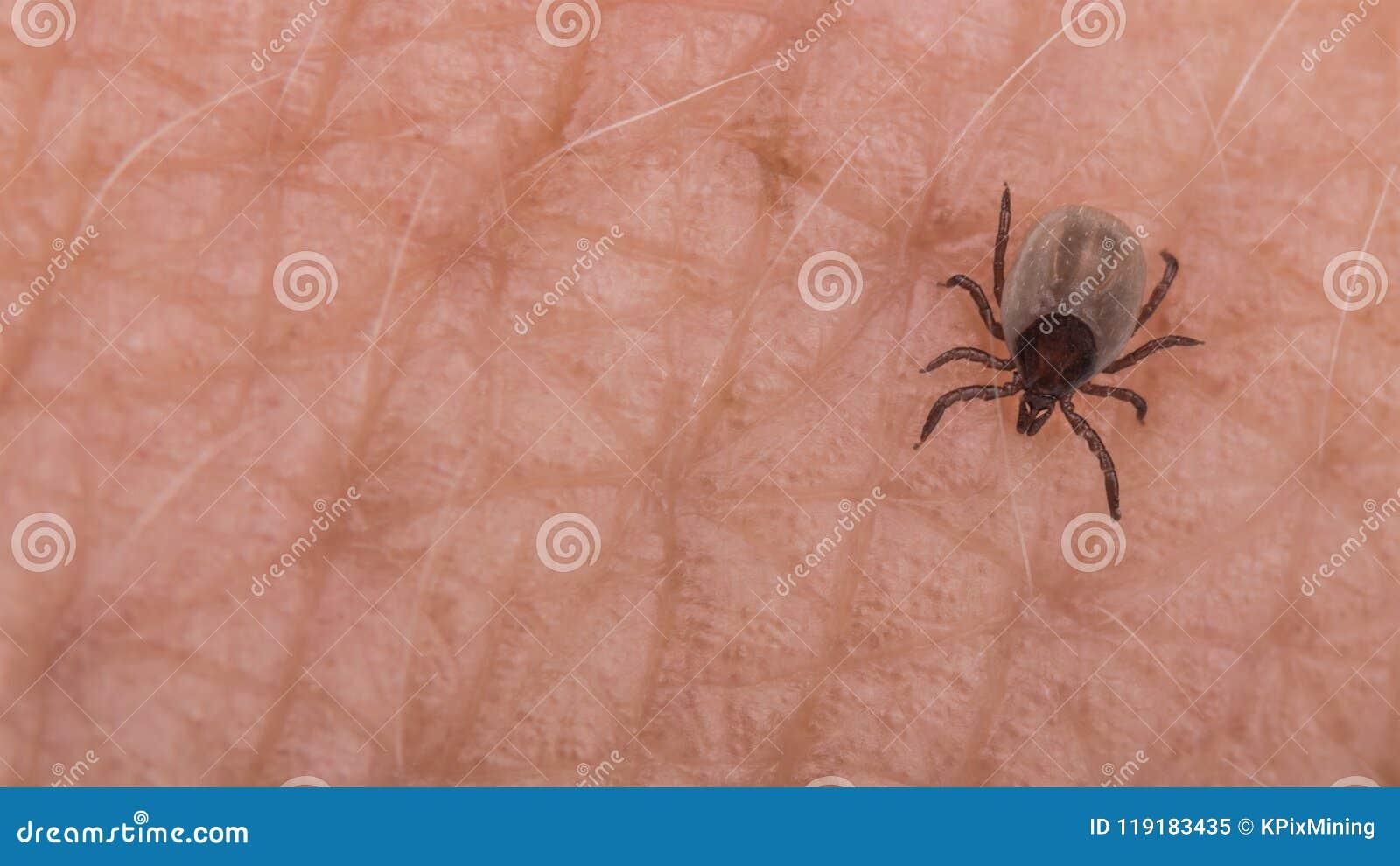 Kleine Rotwildzecke auf menschlicher Hautnahaufnahme Ixodes Ricinus