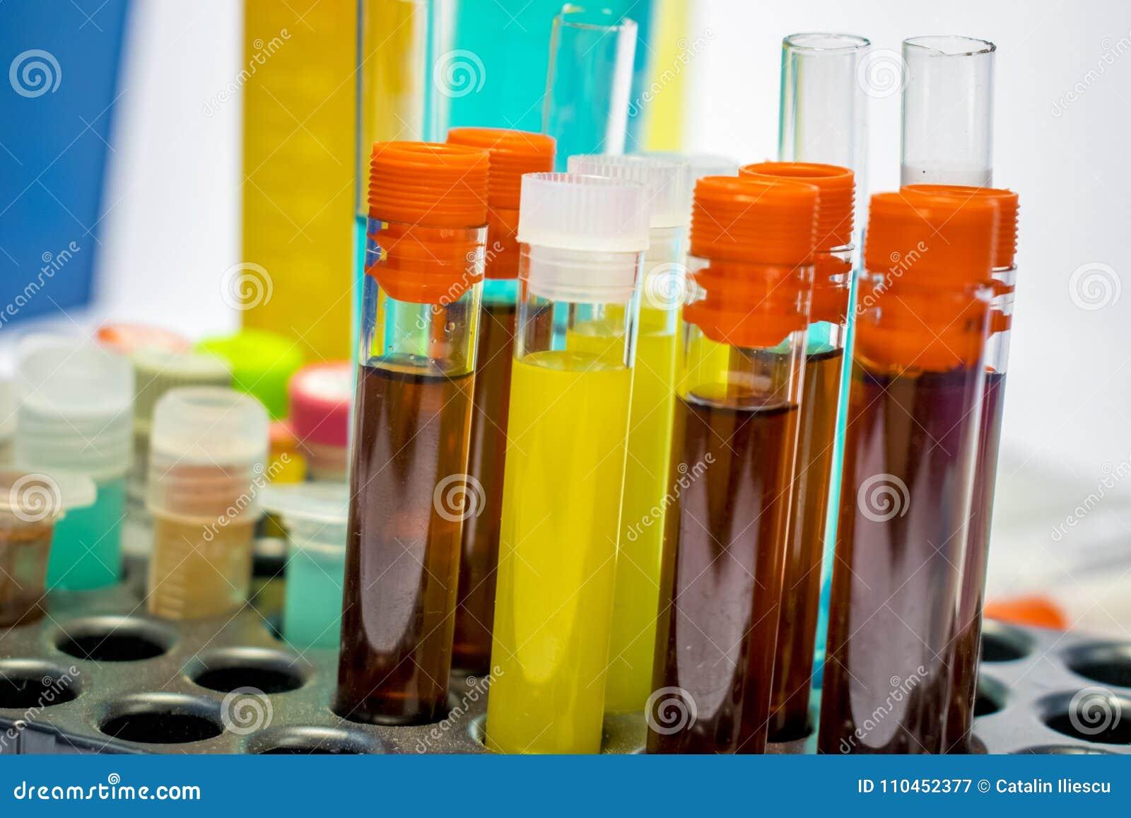 Kleurrijke laboratoriumreageerbuizen, biochemiebloedonderzoeken, urinetest, reageerbuis, medische analyse, onderzoekconcept, vruc