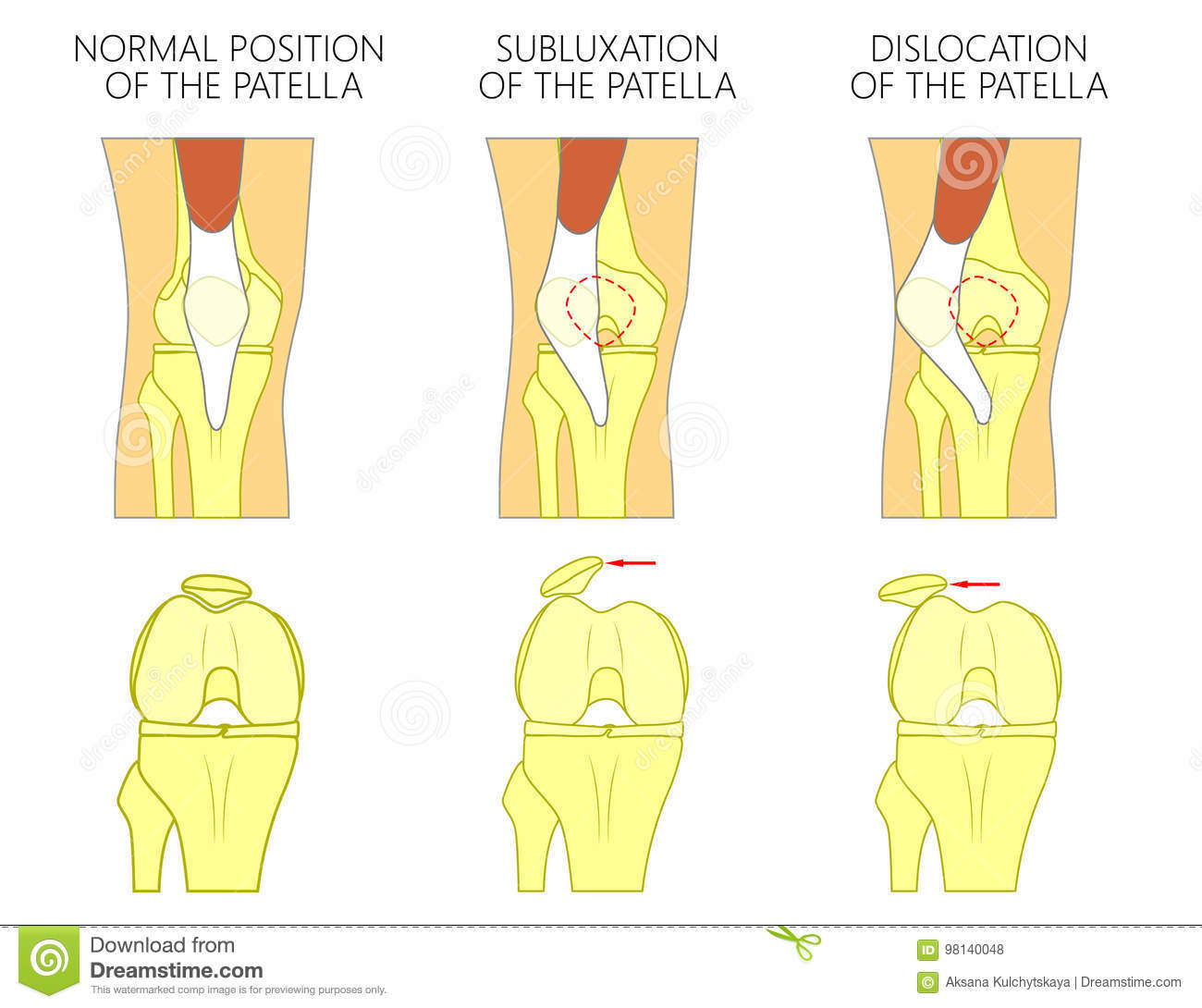 Knee Joint Problem_Dislocation Of The Patella Stock Vector ...