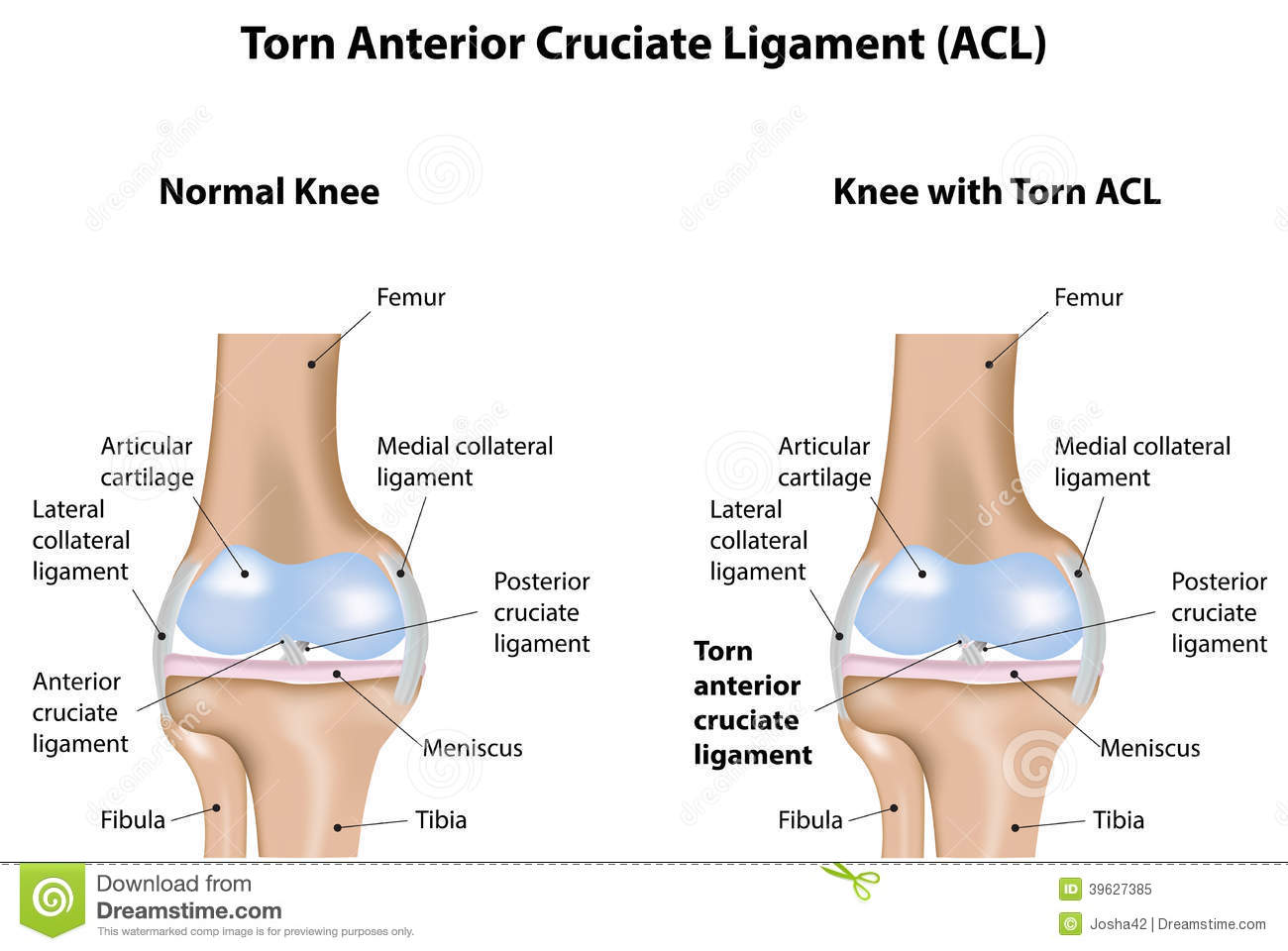 Royalty Free Stock Photo Knee Joint Torn Anterior Cruciate Ligament  mon Musculoskeletal Disease Image39627385