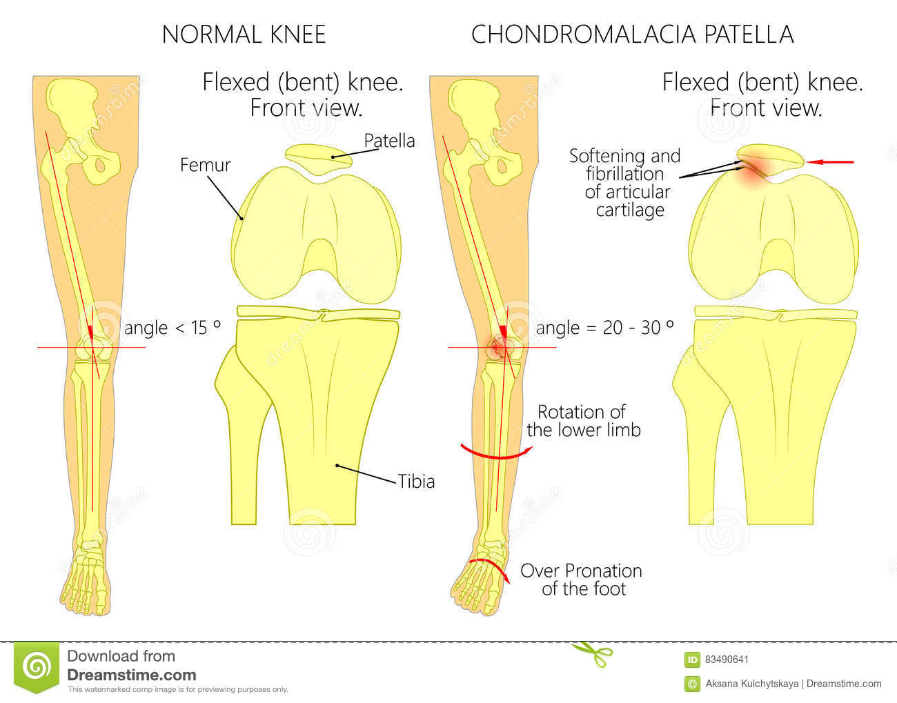 Knee pain and chondromalacia patella stock vector illustration knee pain and chondromalacia patella pooptronica Image collections