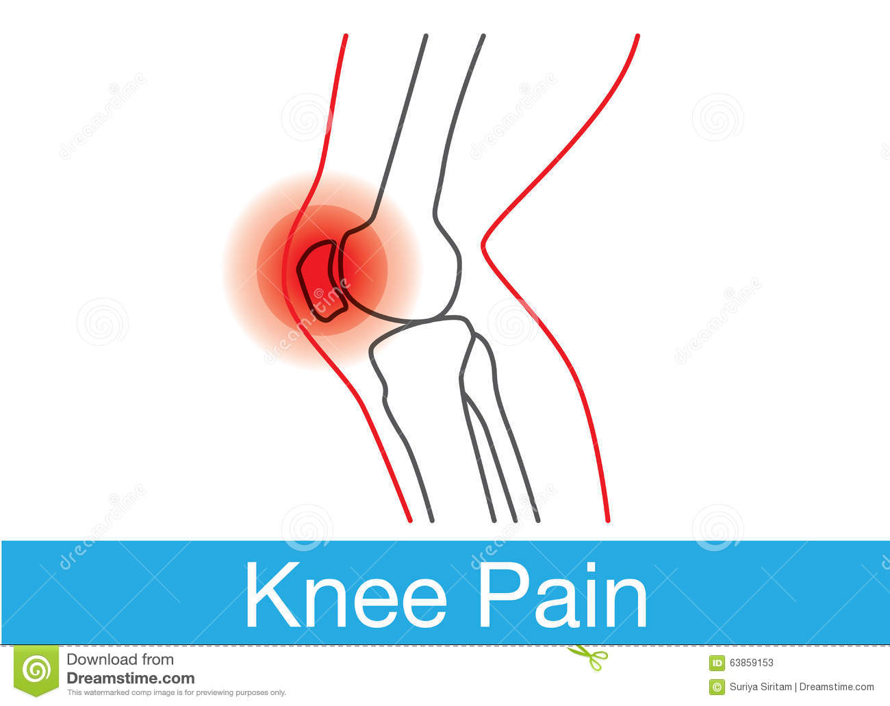 Knee pain outline stock vector illustration of doctor 63859153 knee pain outline pooptronica Image collections