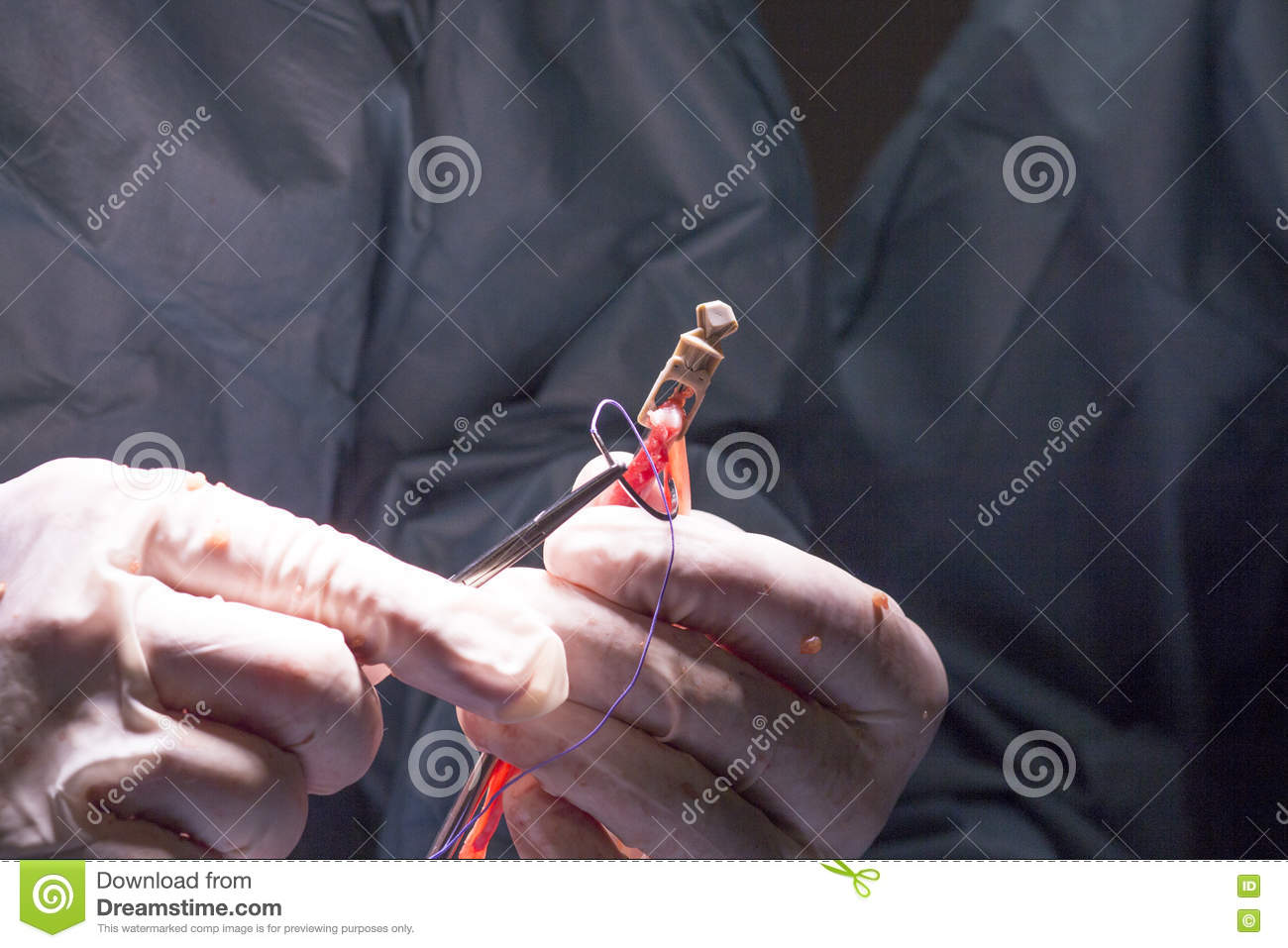 Knee Tendon Ligament Surgery Royalty Free Stock Photo