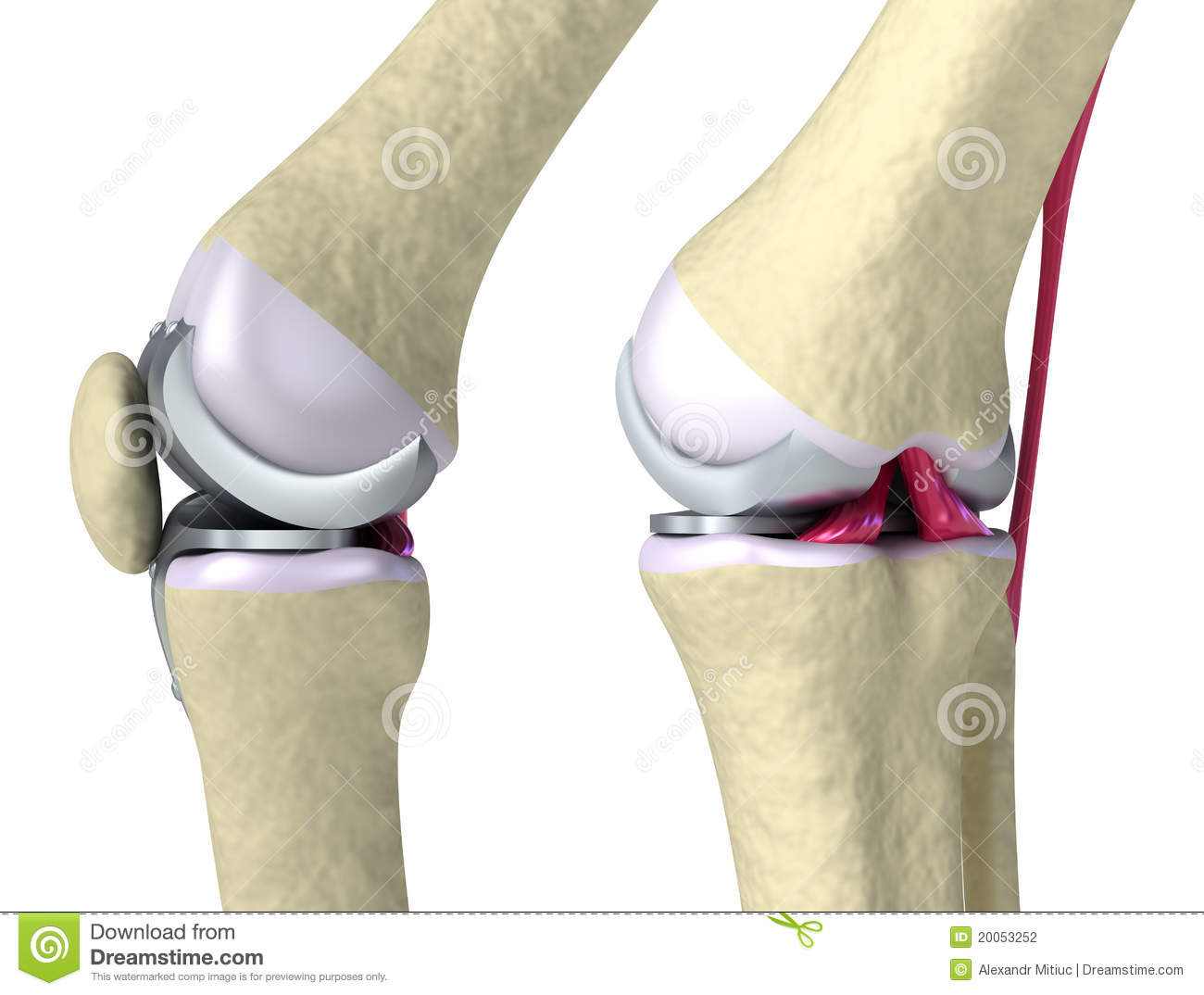 Knee And Titanium Hinge Joint Stock Photography - Image ... Hinge Joint Knee