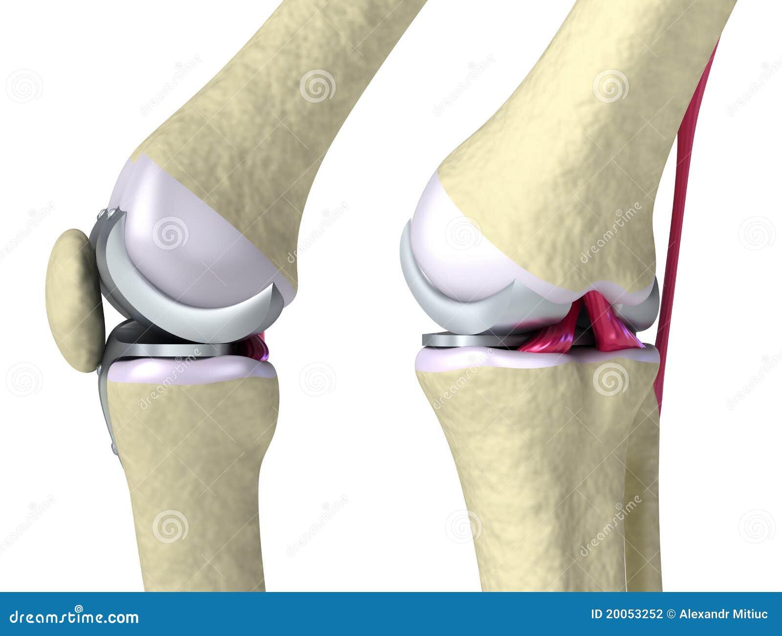 Knee And Titanium Hinge Joint Stock Illustration Illustration Of