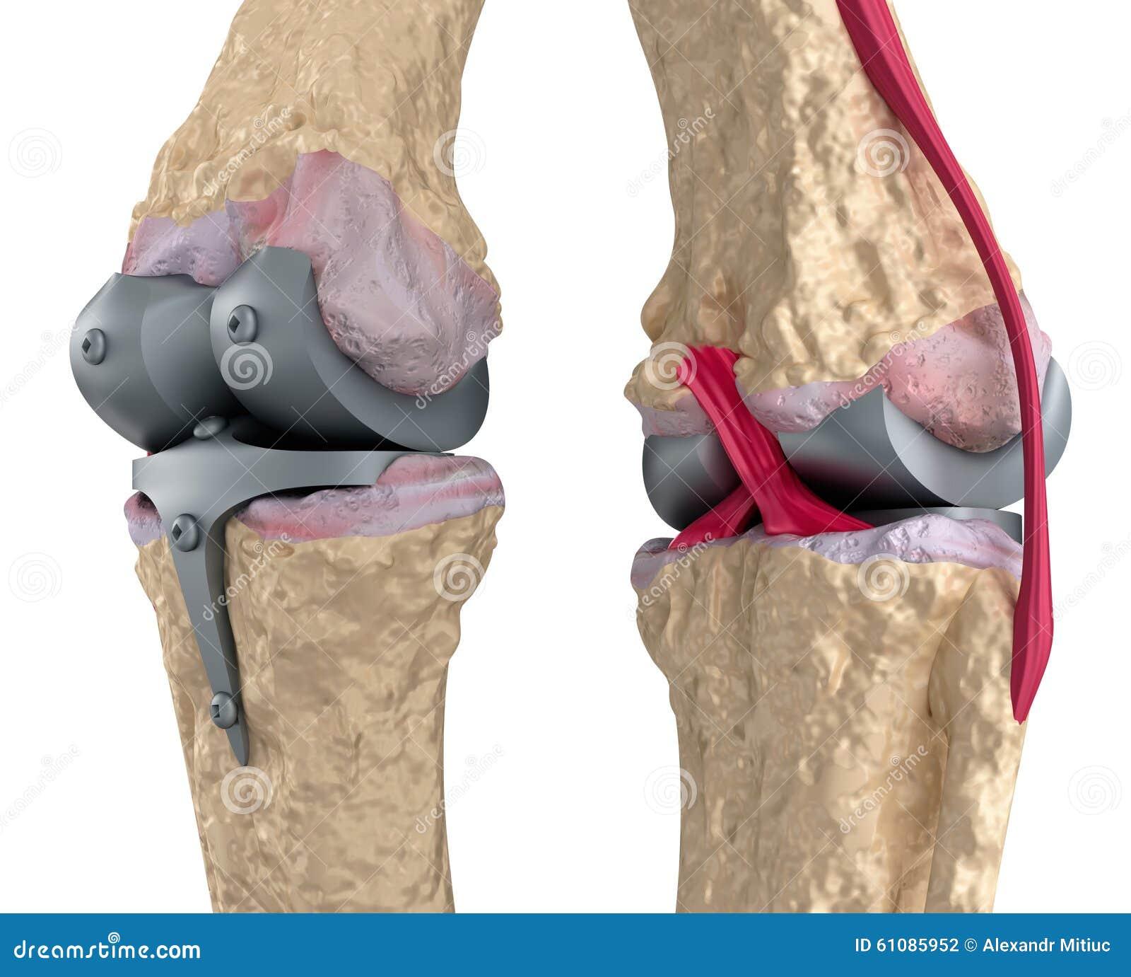 Knee And Titanium Hinge Joint. Stock Illustration - Image ... Hinge Joint Knee