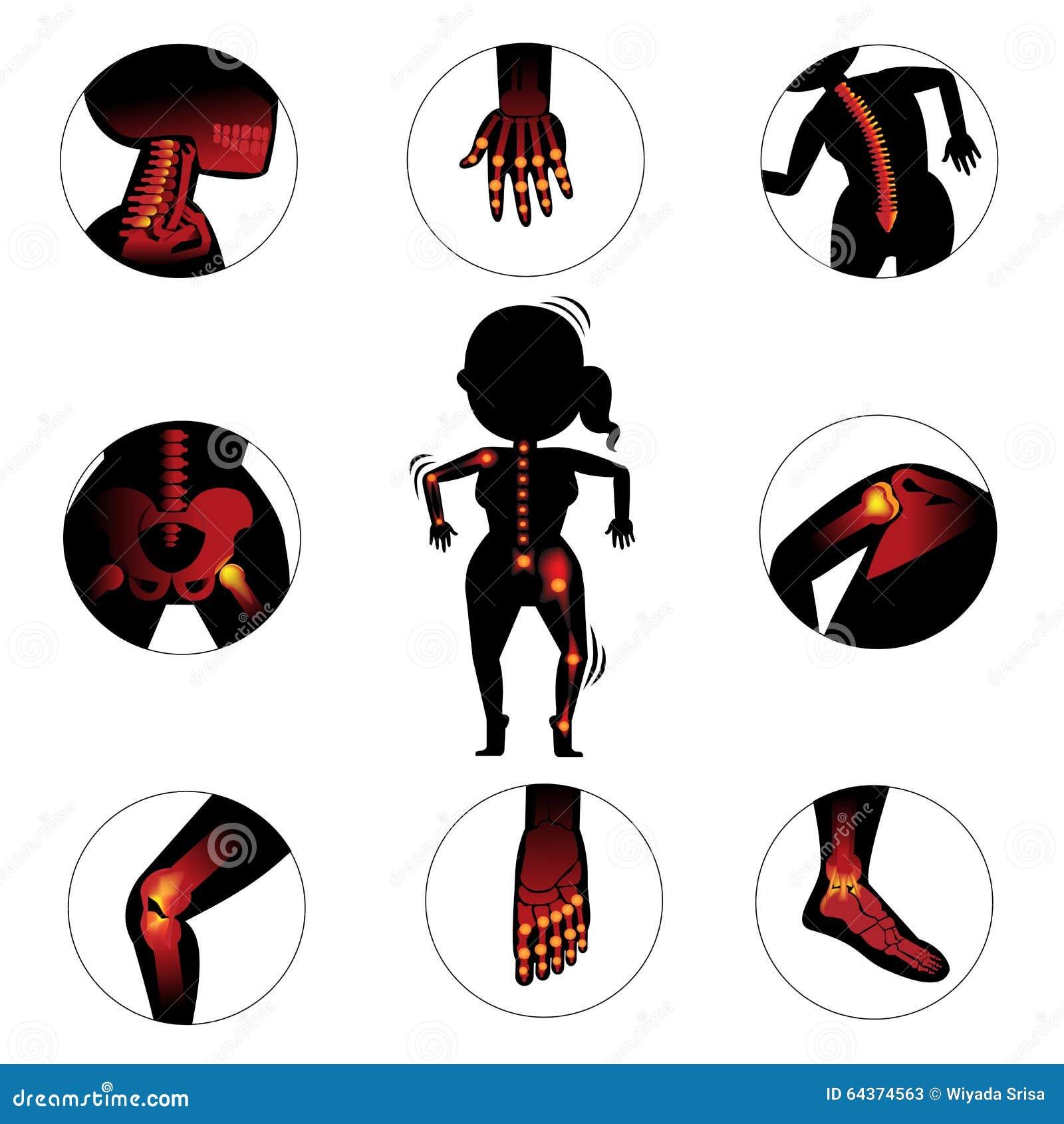Knochen und Gelenke vektor abbildung. Illustration von anatomie ...