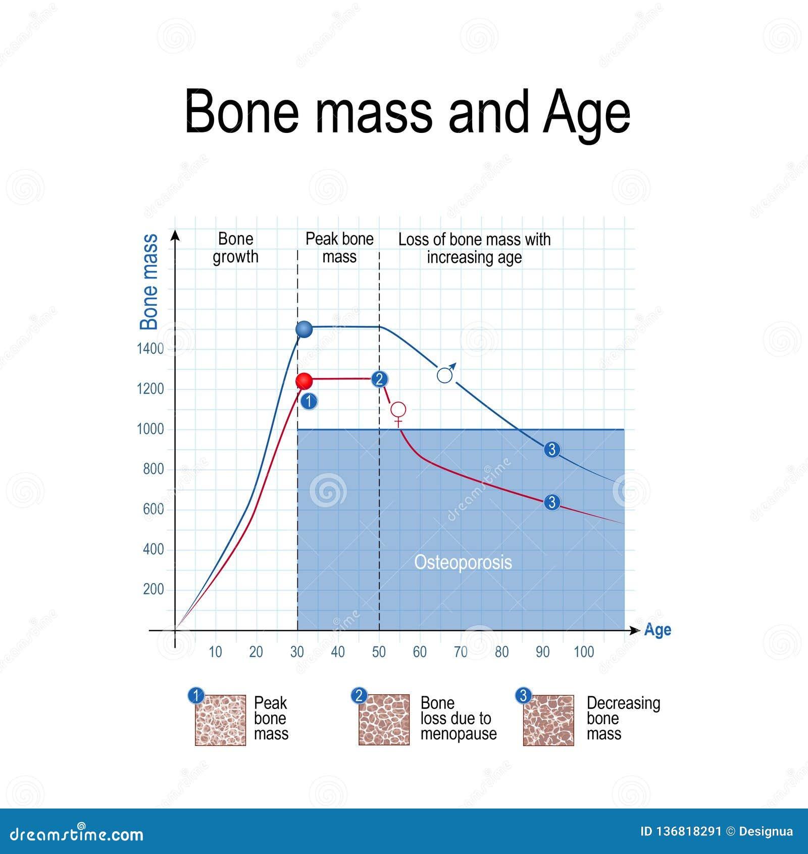 Knochenmasse für männliches und weibliches Alter und Osteoporose diagramm