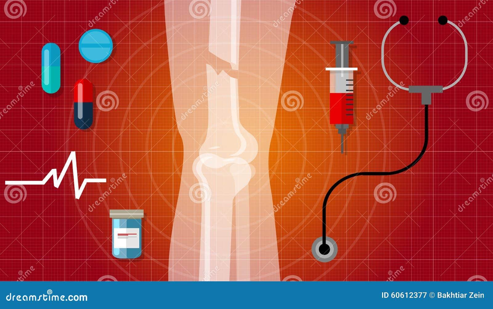 Kość przełamu złamanych nóg anatomii x promienia leczenia ilustraci ludzka ikona