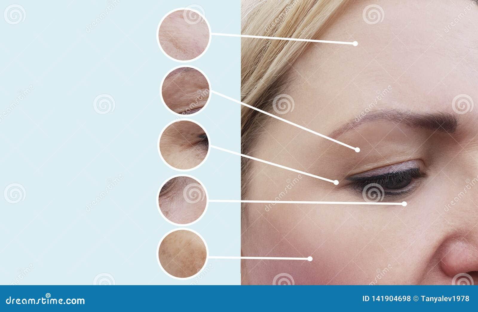 Kobiet zmarszczenia przed i po beautician terapii procedurami