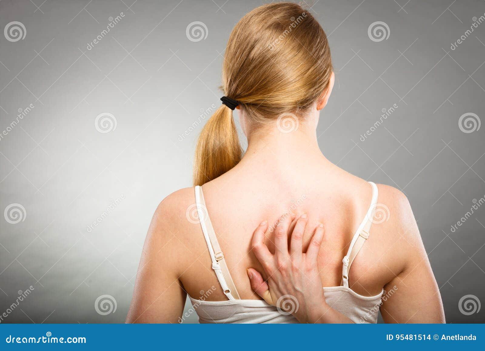 Kobieta drapa jej itchy plecy z alergii wysypką