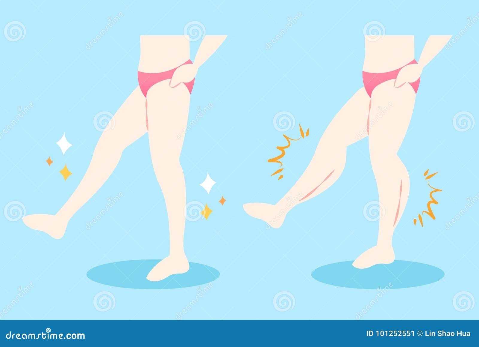 Kobieta z mięśniowymi łydkami