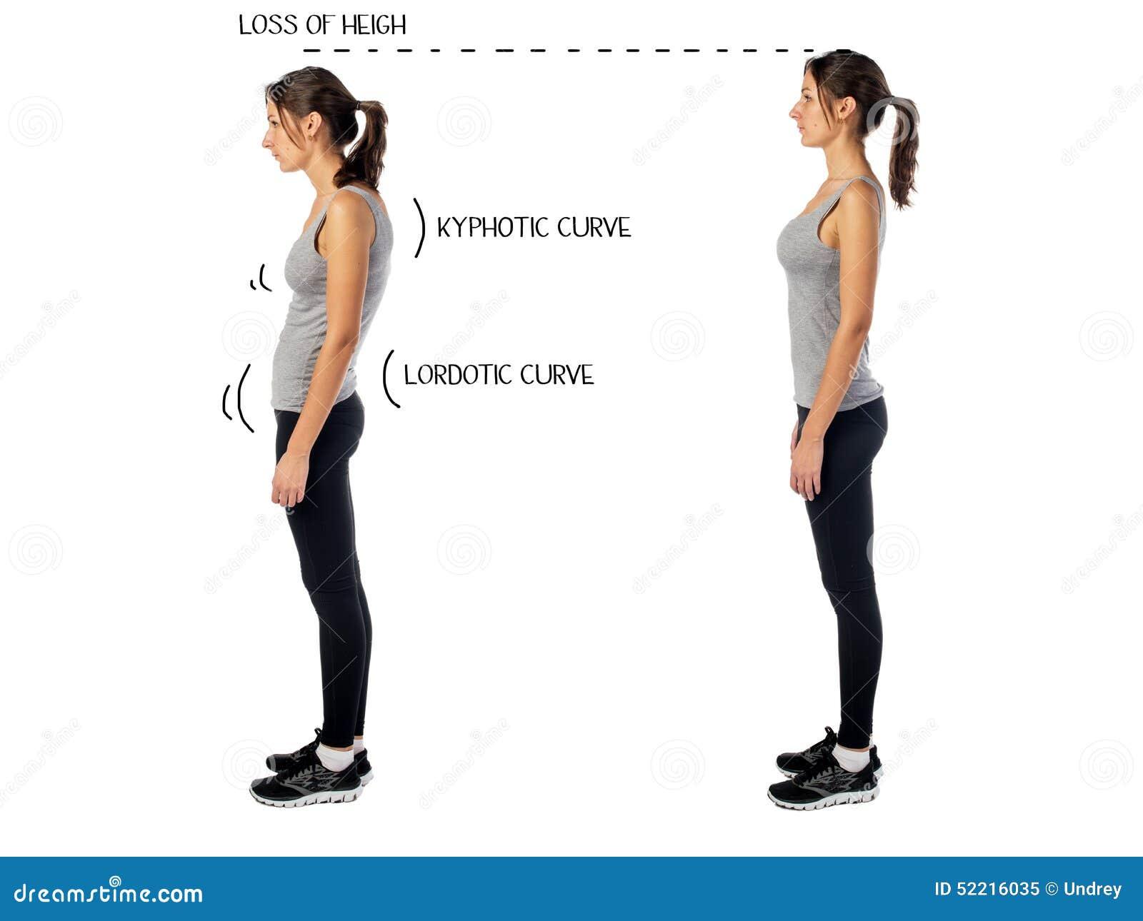 Kobieta z nadwyrężonym postury pozyci defektem