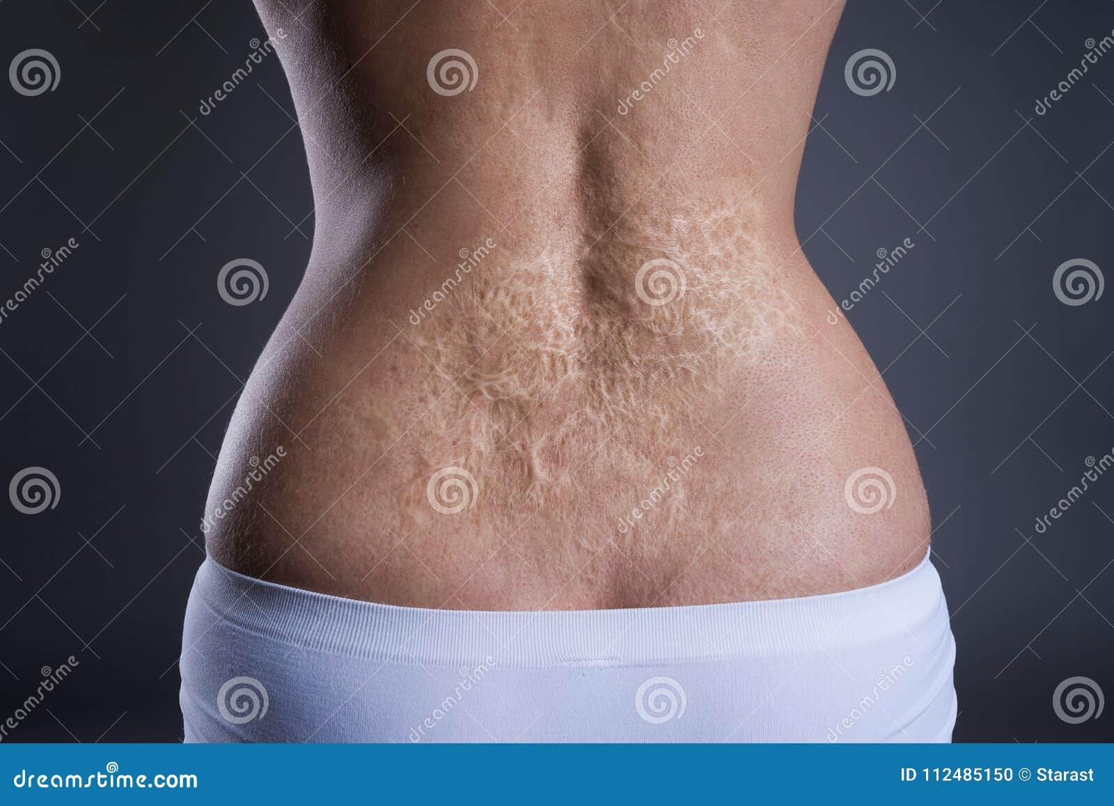 Kobieta z wielką blizną po oparzenie na plecy