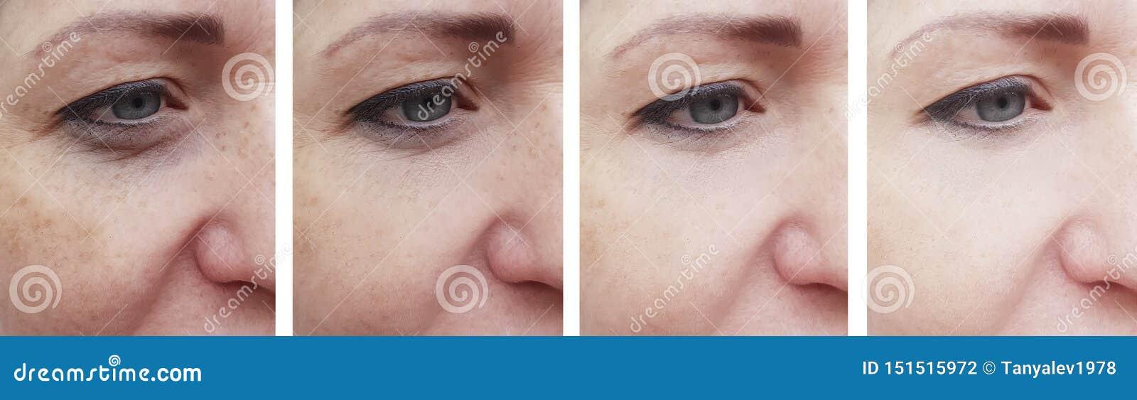 Kobiety twarz marszczy korekcja pacjenta przed i po kosmetologii traktowania odmładzaniem