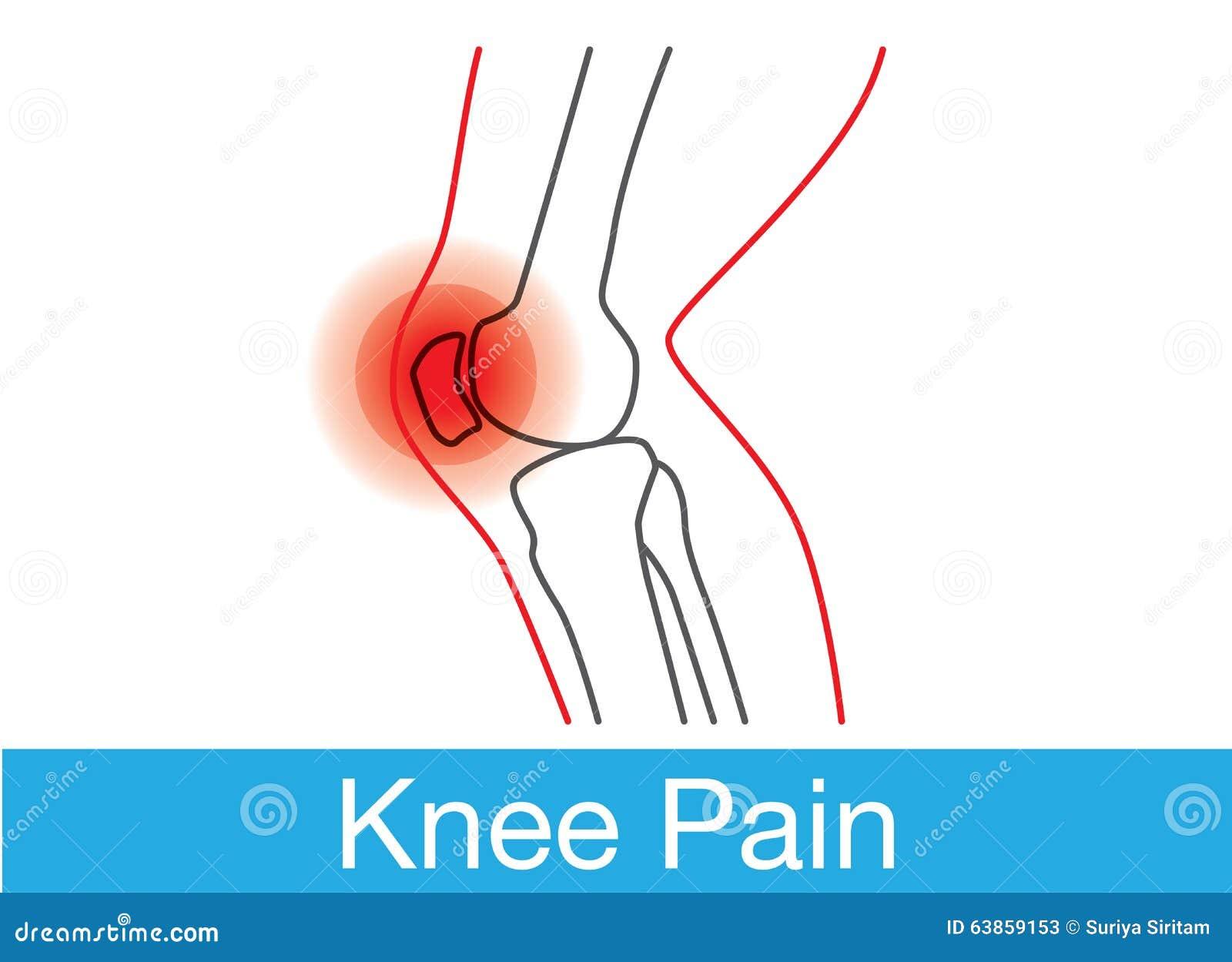 Kolano bólu kontur