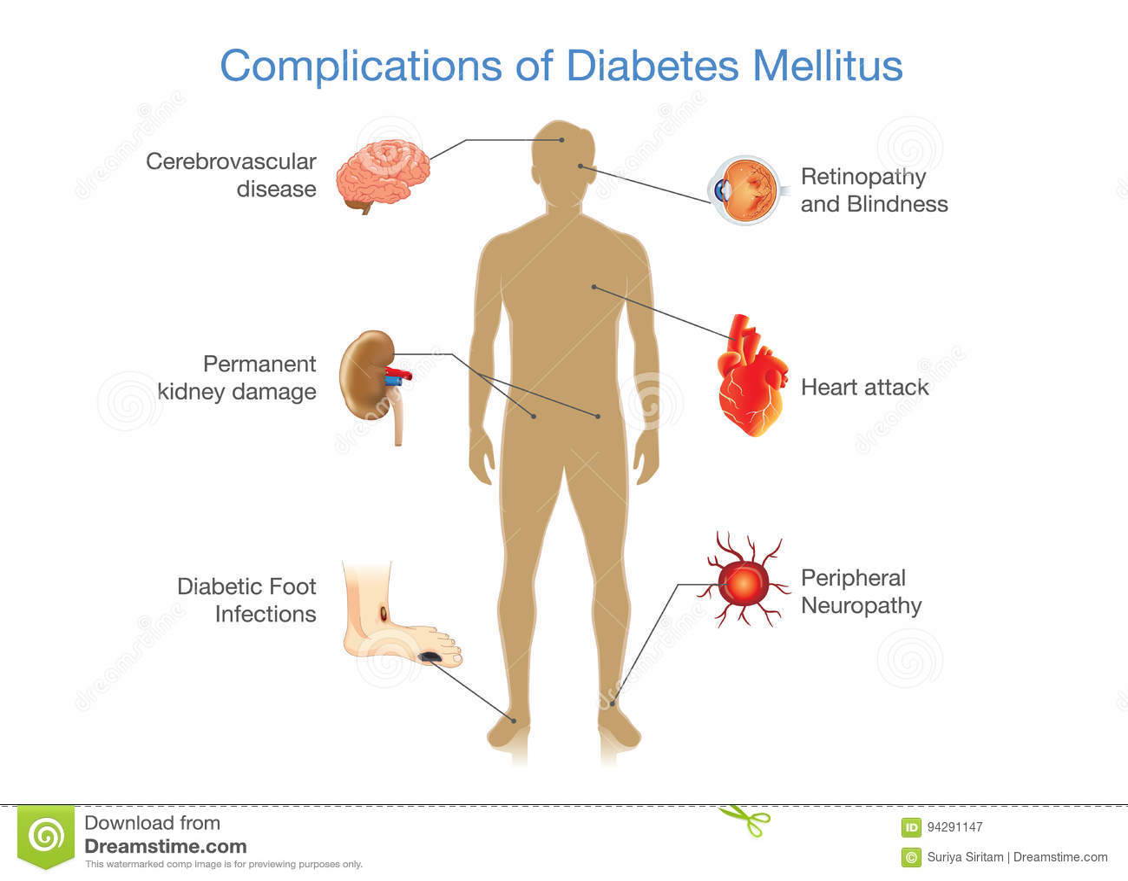 bota diabetes typ 2