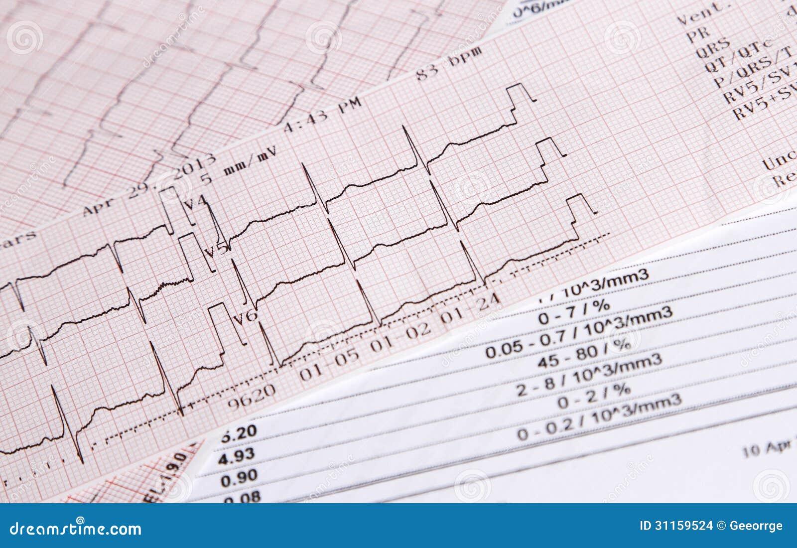 Kontroll för hjärtahastighet