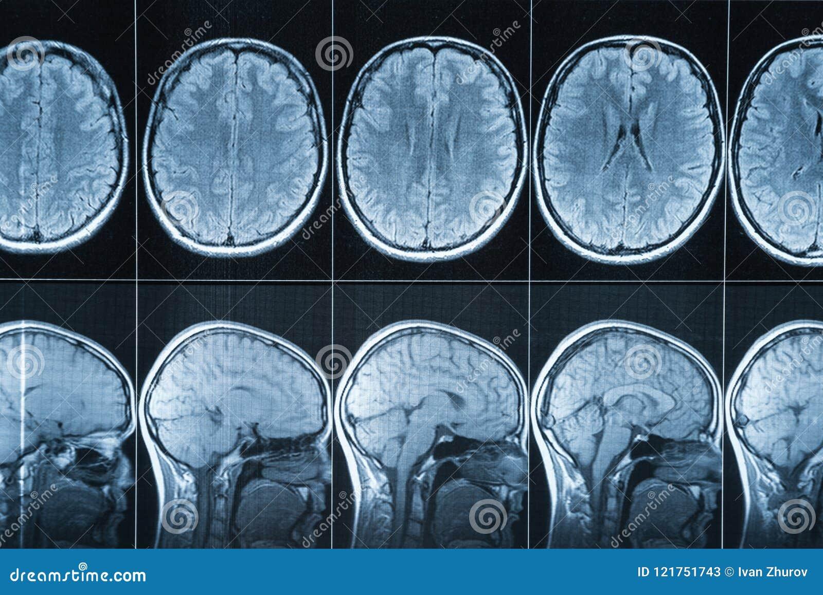 Kopiering för magnetisk resonans av huvudet, MRI