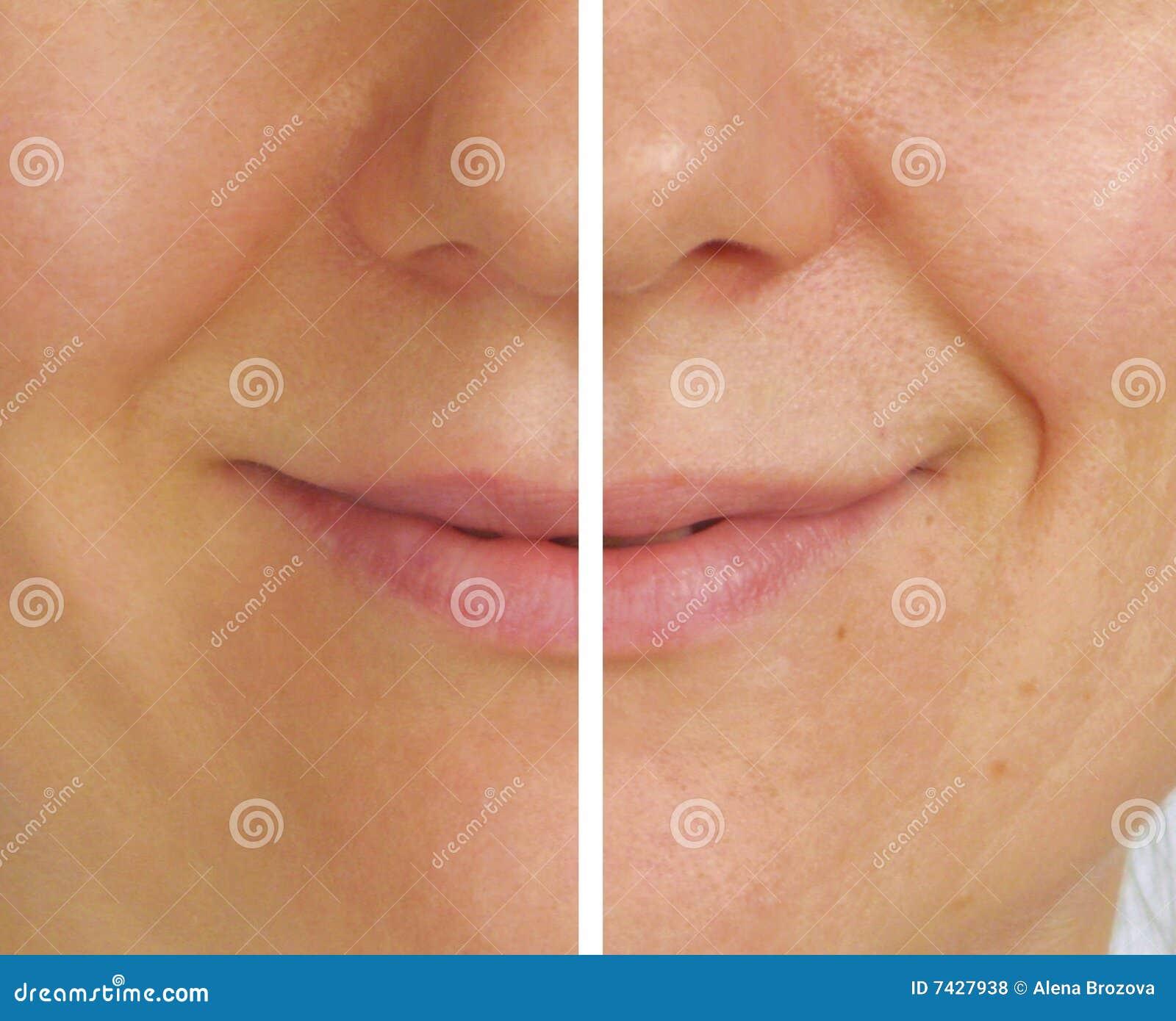 Korekci twarzy połówki zmarszczenia