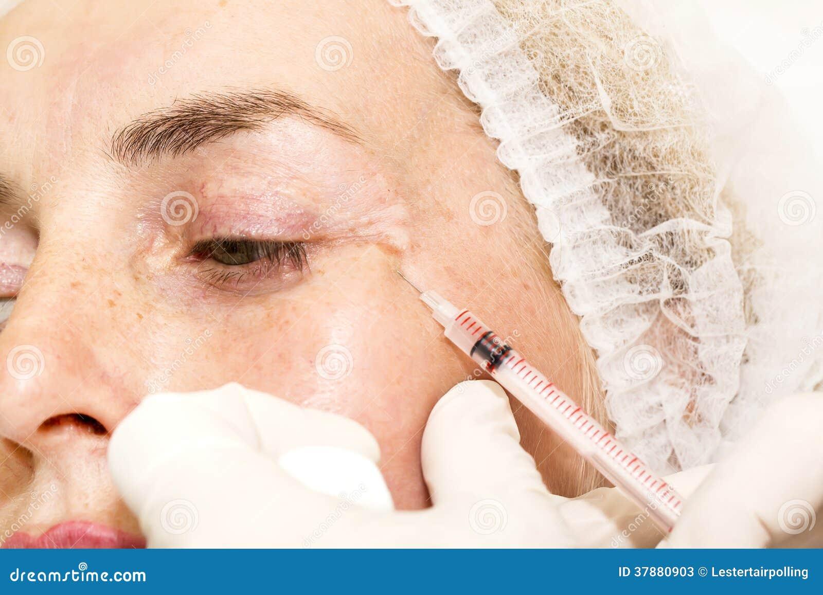 Kosmetische chirurgie