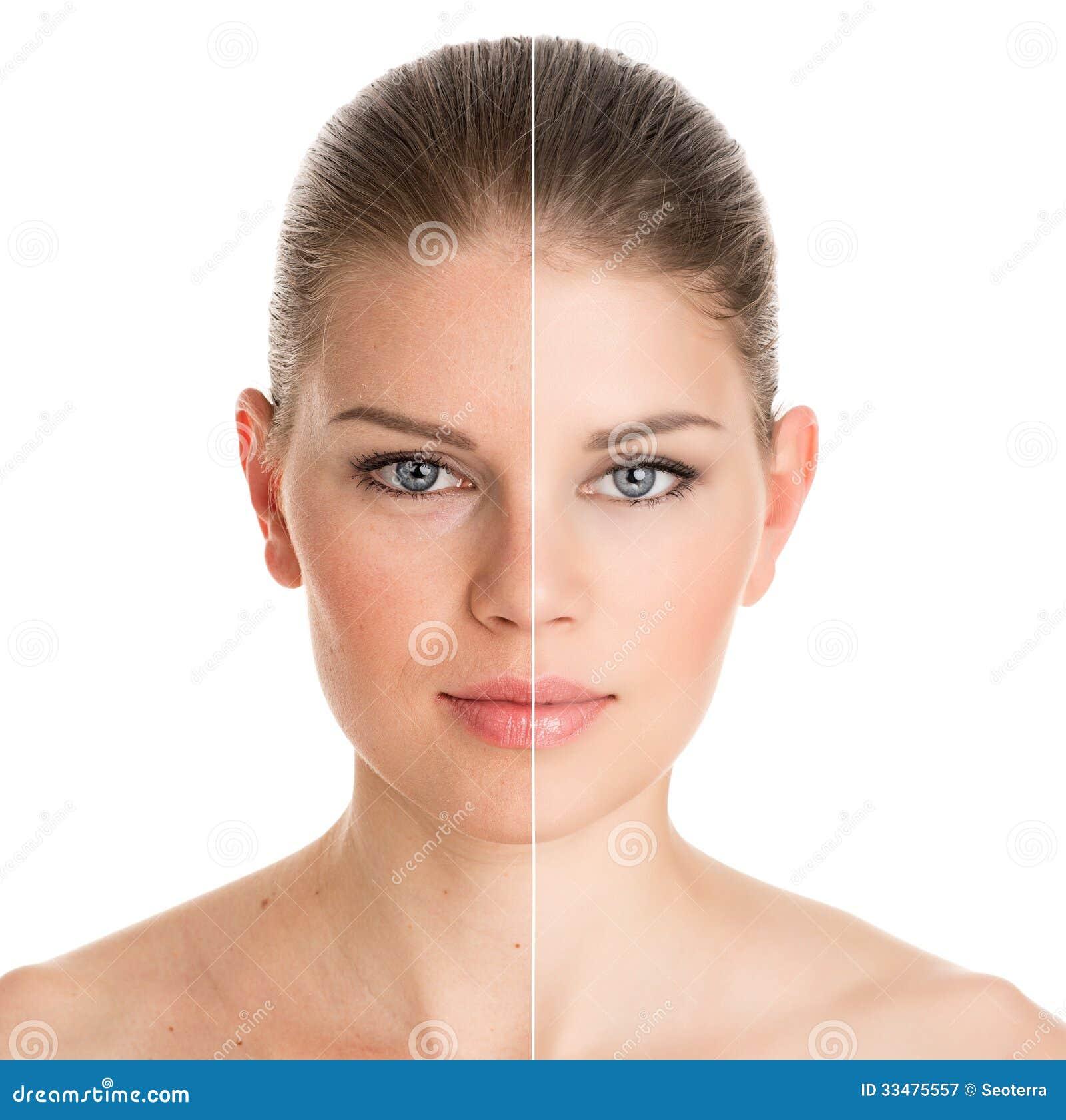Before and after kosmetische verrichting