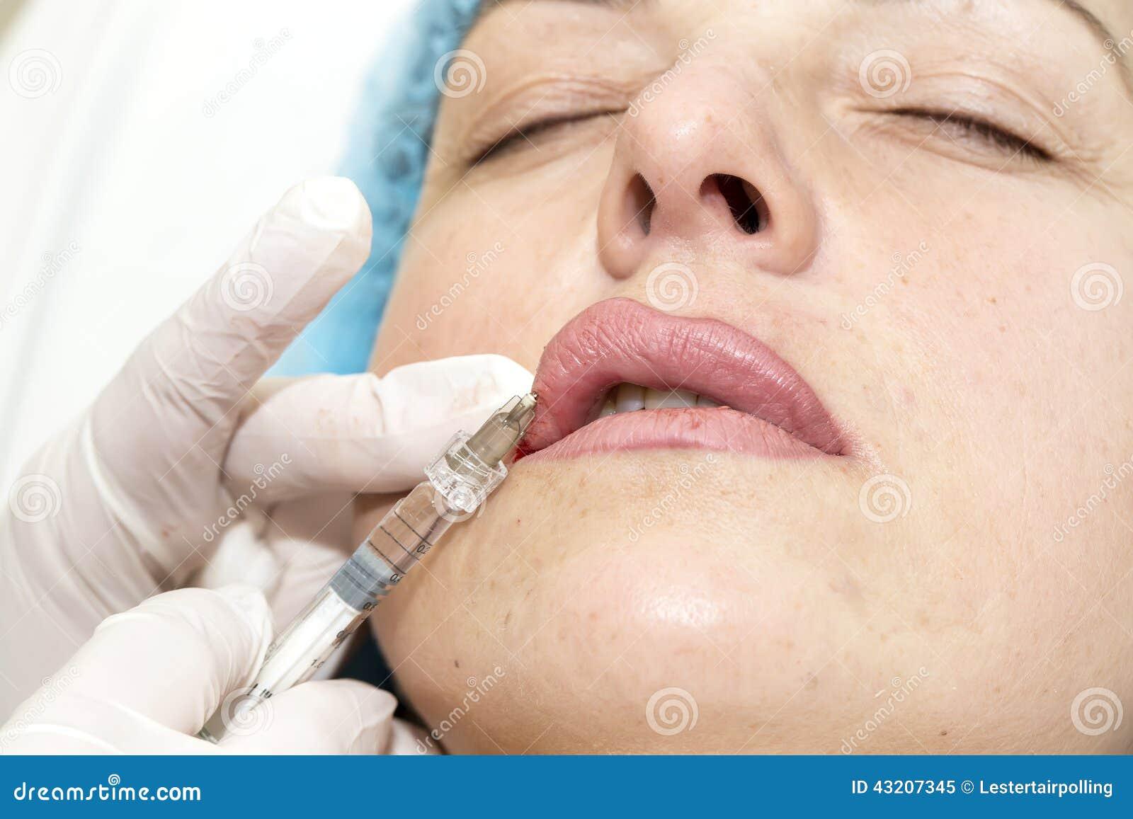 Download Kosmetisk kirurgi fotografering för bildbyråer. Bild av klinik - 43207345