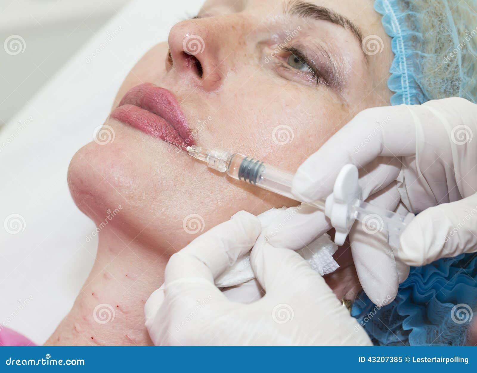 Download Kosmetisk kirurgi fotografering för bildbyråer. Bild av moget - 43207385