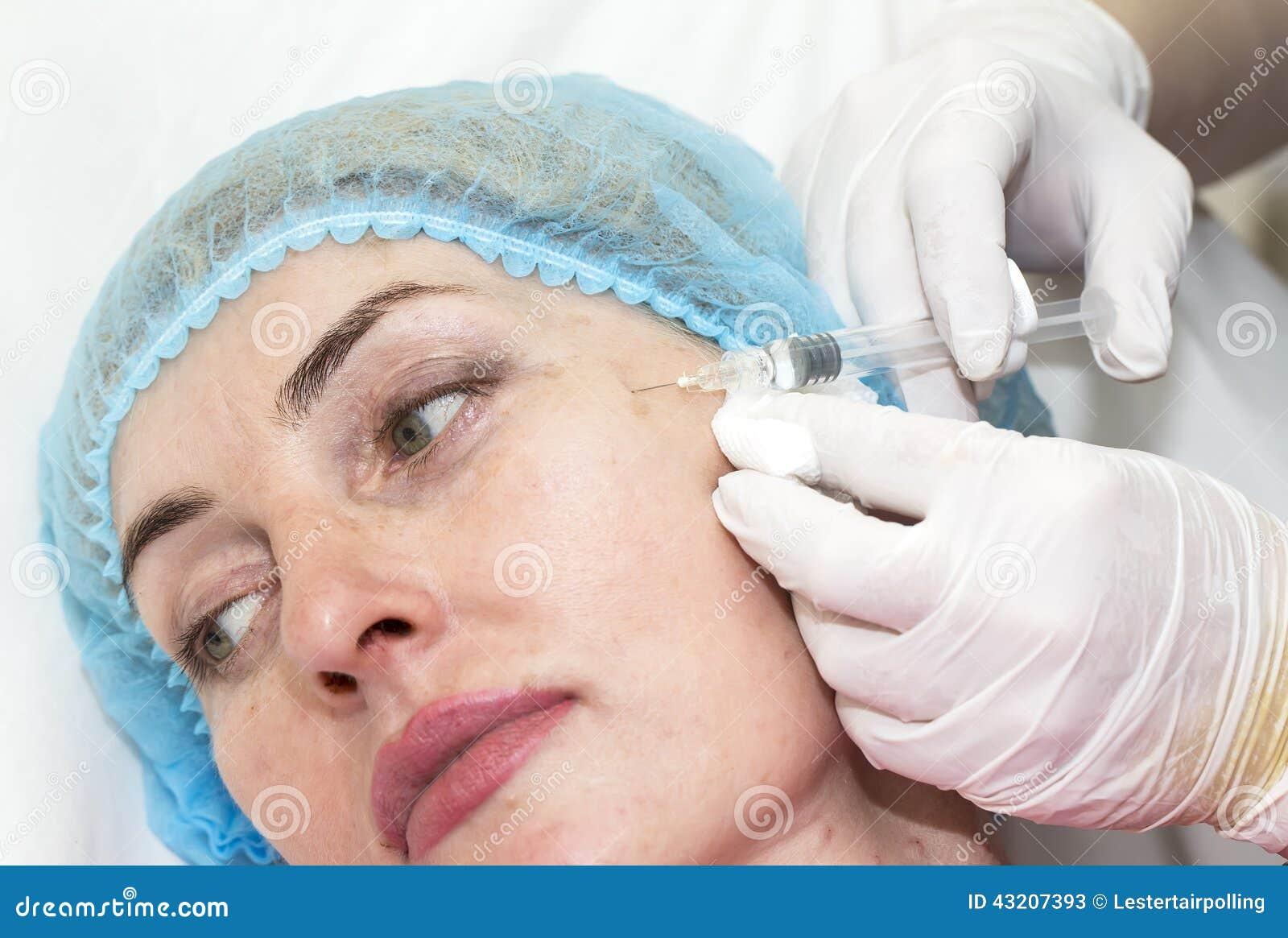 Download Kosmetisk kirurgi fotografering för bildbyråer. Bild av vanligt - 43207393