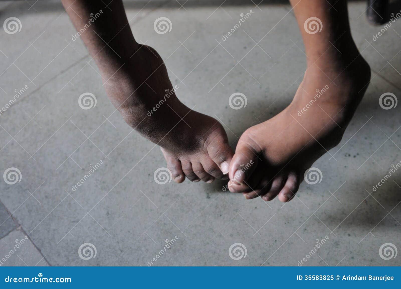 Kręcone nogi