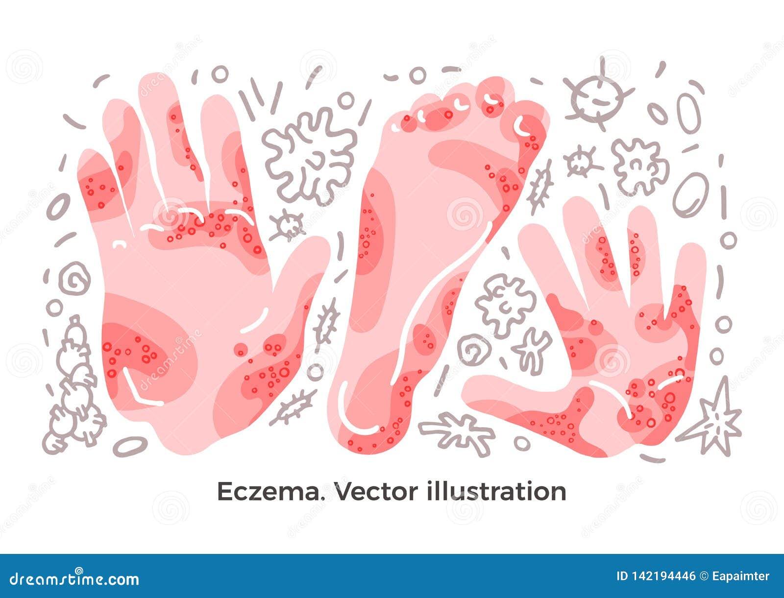 Kreskówki serc biegunowy setu wektor Egzema, choroba objaw, bakterie Skór wysypki na ręce, ręka Sztuki ilustracja
