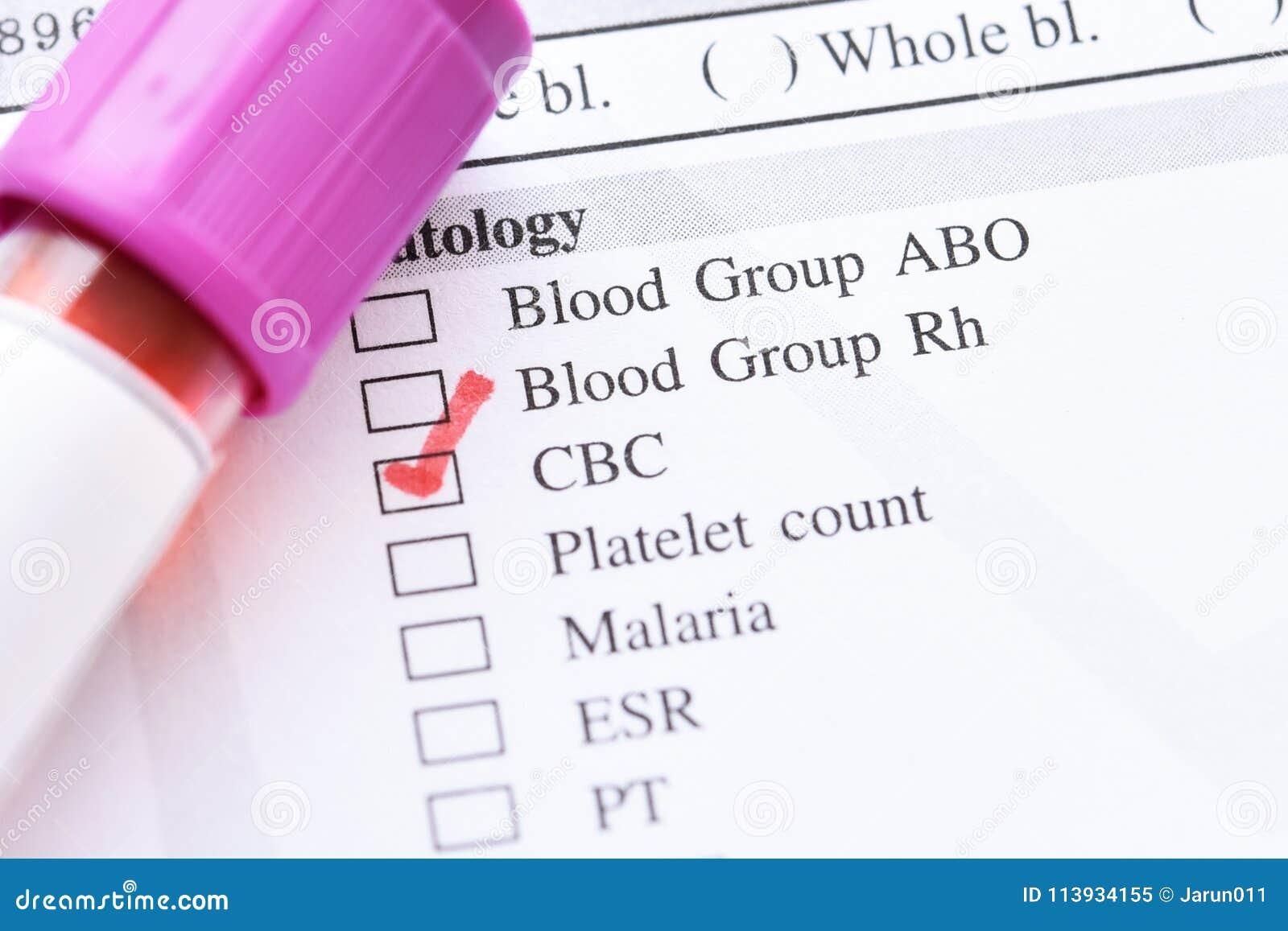 Krew dla CBC testa