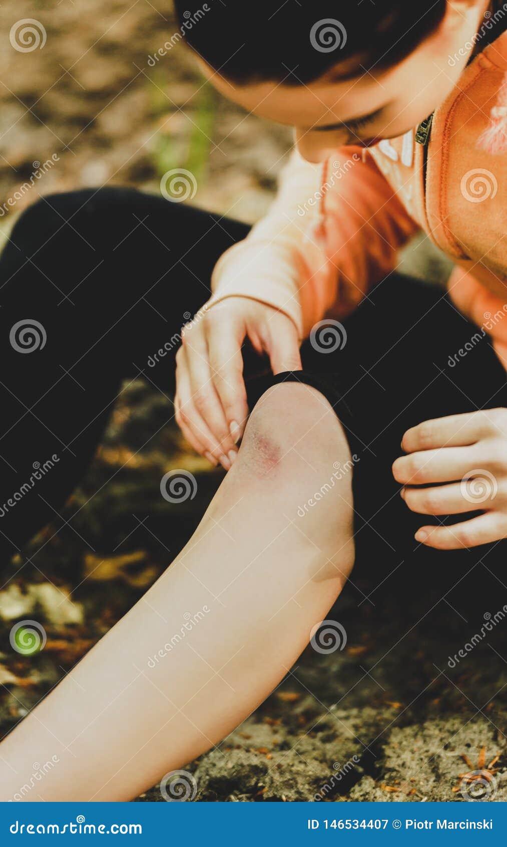Krwawić porysowanego kolano