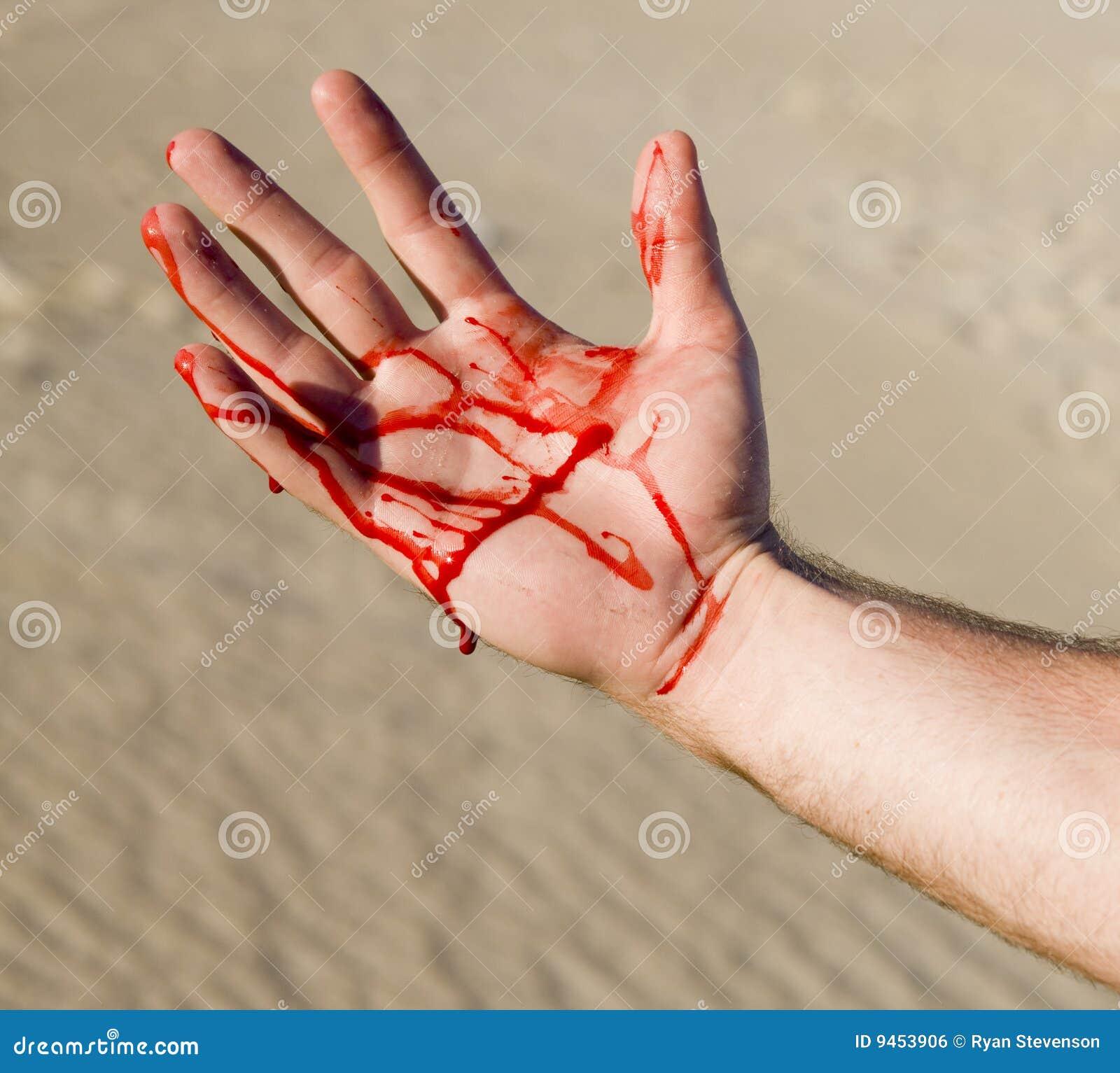 Krwista ręka