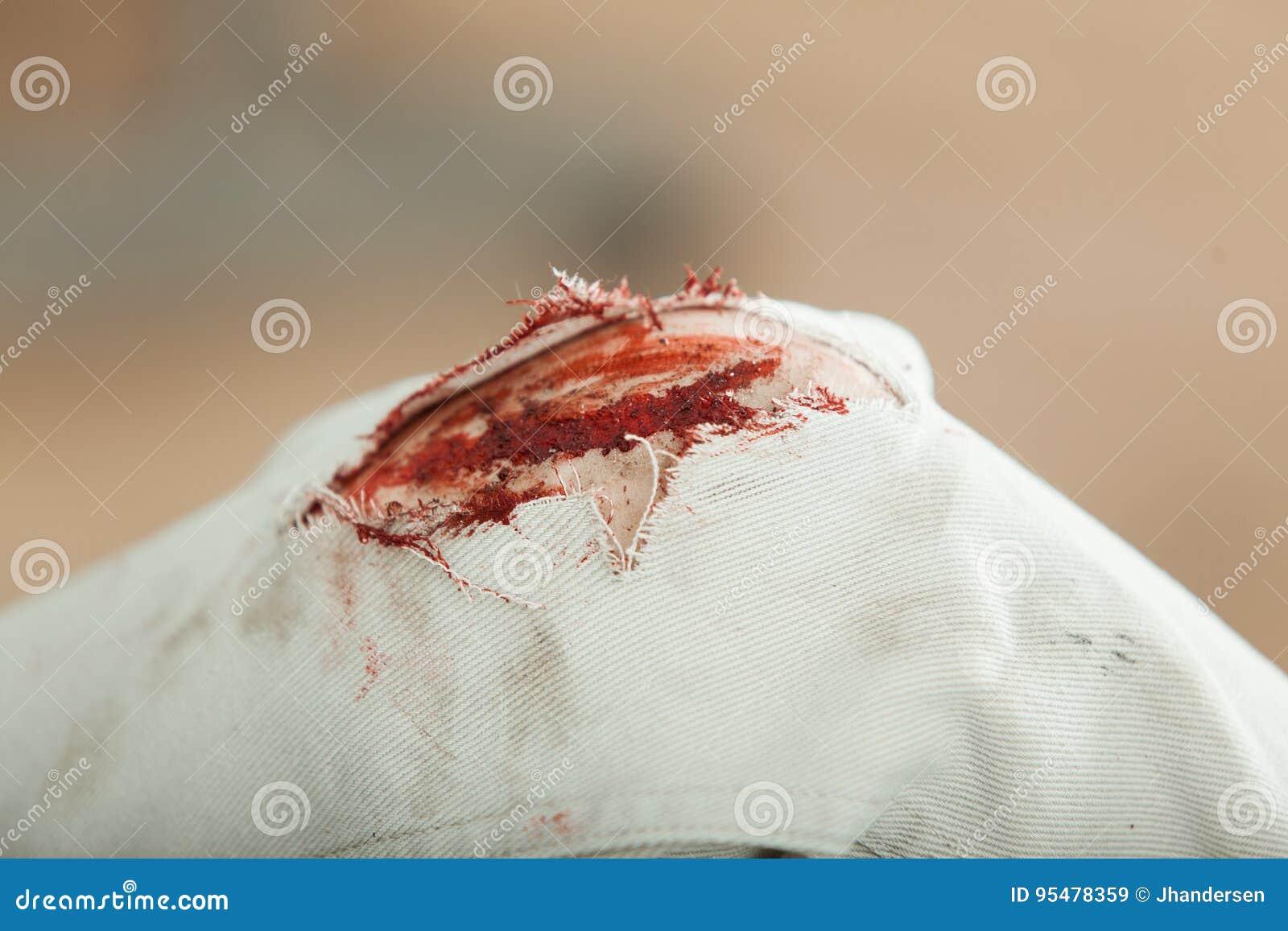 Krwisty gashed kolano młody człowiek